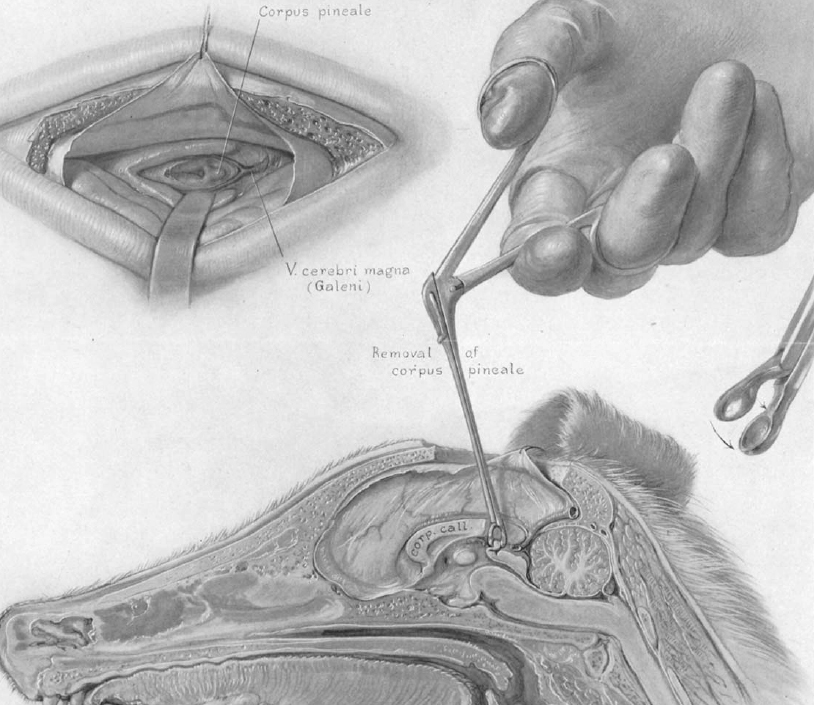 Figure 1: Just about 100 years ago, Walter Dandy described the technique of using the posterior transcallosal route for safely removing the pineal gland in puppies.