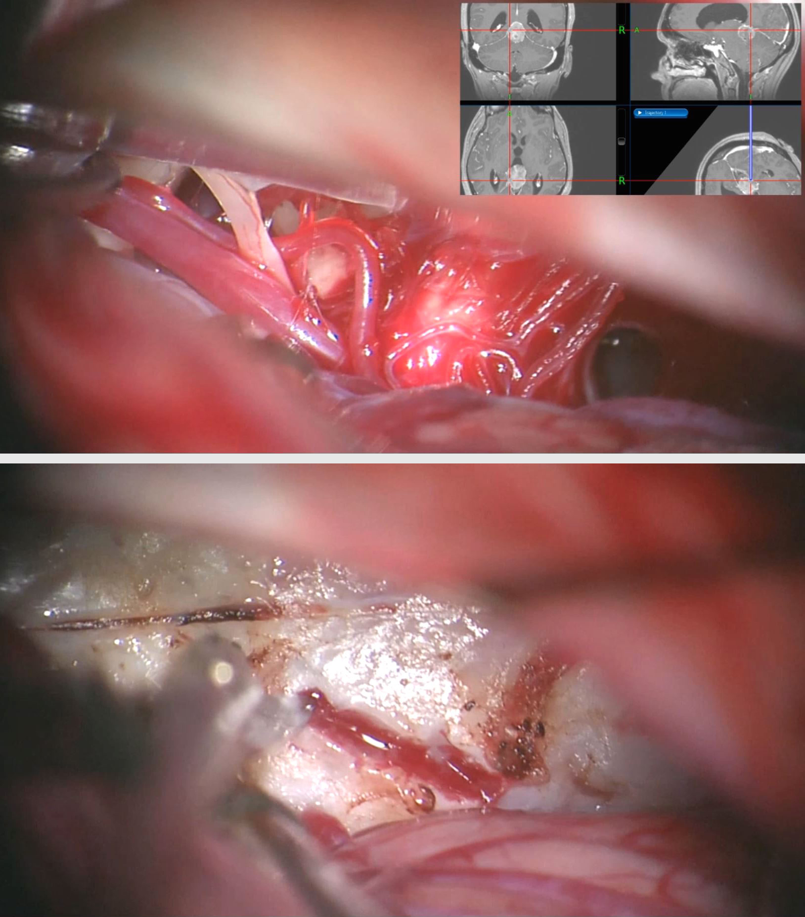 Figure 20: A left-sided paramedian supracerebellar route was used to resect a pineoblastoma. Note CN IV on the left side of the top photo. The branches of the superior cerebellar artery were mobilized. The bottom image demonstrates the posterior tumor capsule via the unilateral approach.