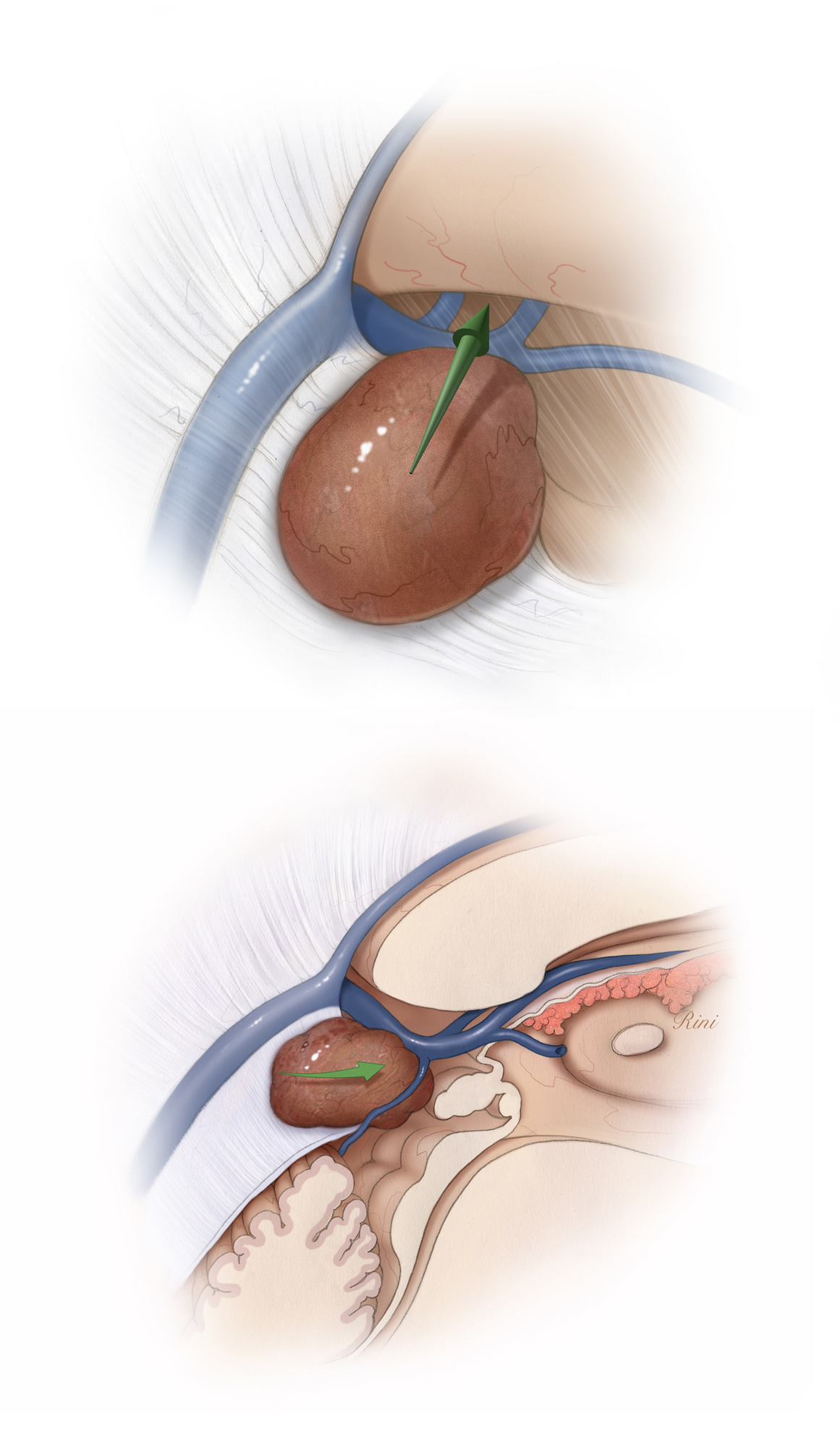 Figure 8: However, if the deep veins are displaced dorsally (top image) or anteriorly (bottom image), the infratentorial supracerebellar approach is favored.
