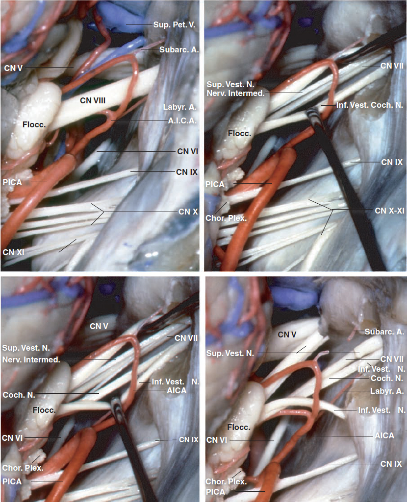 Figure 2: The cranial nerves of the CP angle through a right-sided retrosigmoid approach are shown. The vestibulocochlear nerve enters the IAC along with a labyrinthine branch of the anterior inferior cerebellar artery (AICA). The posterior wall of the IAC has been removed in the last three images to show the cleavage plane between the upper components of CN VII/VIII complex formed by the superior vestibular nerve and facial nerve, and the lower components formed by the inferior vestibular and cochlear nerves. The facial nerve is located anterior to the superior vestibular nerve and the cochlear nerve is anterior to the inferior vestibular nerve. The superior vestibular nerve is posterior and superior, the facial nerve anterior and superior, the inferior vestibular nerve posterior and inferior, and the cochlear nerve anterior and inferior (images courtesy of AL Rhoton, Jr).