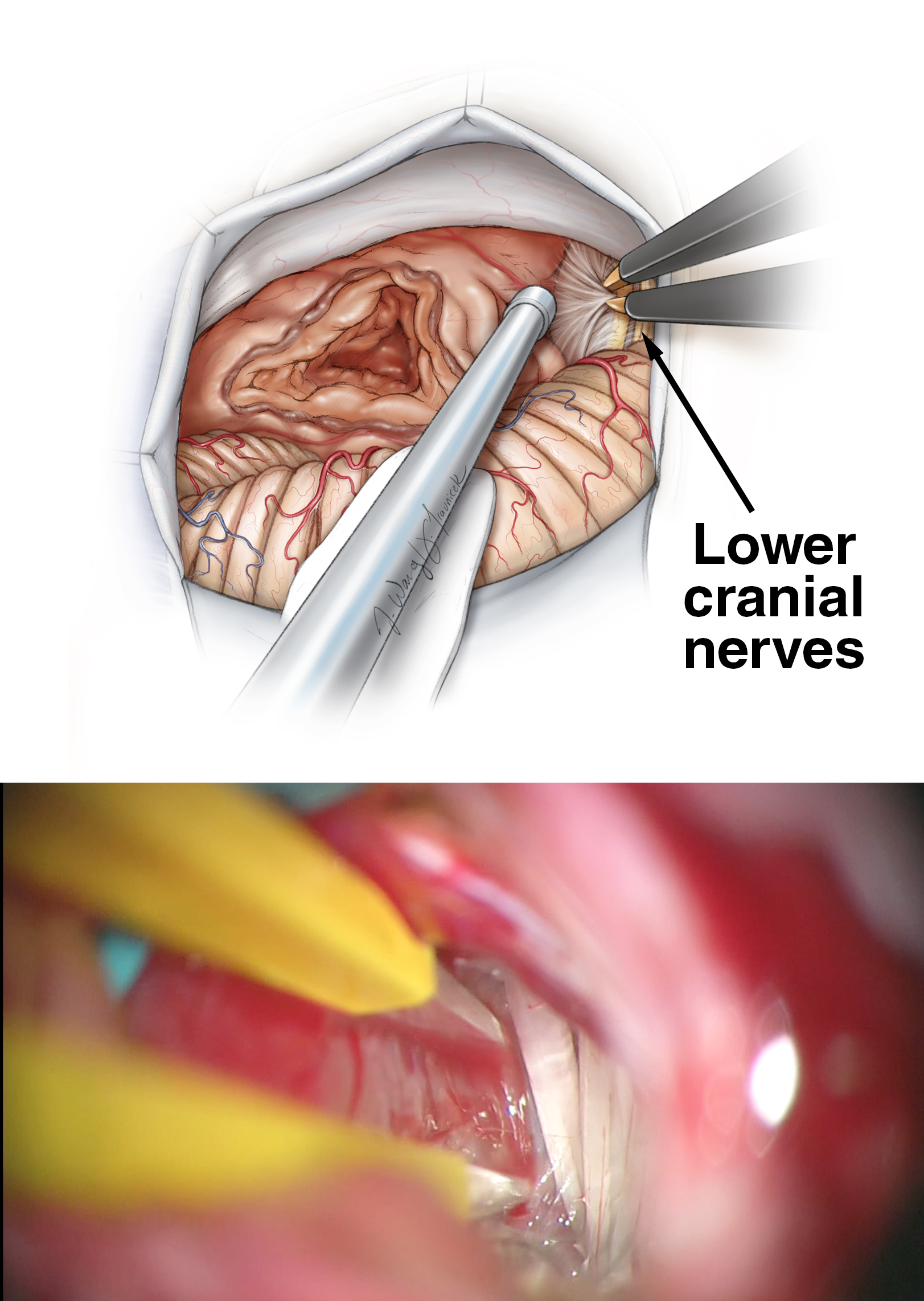 "Figure 10: Removal of tumor from the jugular foramen and lower cranial nerves should be atraumatic because the lower cranial nerves do not significantly attach to the capsule. Before manipulation of the lower pole, stimulation of the capsule excludes the presence of the facial nerve. Note that the nerve may have an undulating course and reach the inferior pole just before it enters the porus. The encasing arachnoid layers of the nerves are used as a ""handle"" by the microforceps to mobilize the nerves. Direct handling of the nerves is avoided."