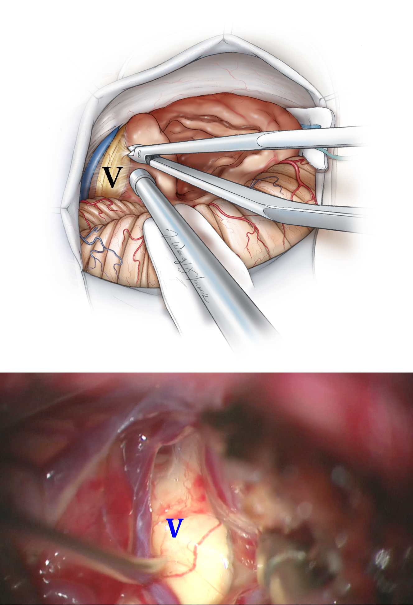 Figure 11: Dissection of the tumor away from CN V is shown. The superior petrosal vein is protected if possible. The lower cranial nerves are covered with a small piece of cottonoid. The lower intraoperative photo shows the root entry zone of CN V.