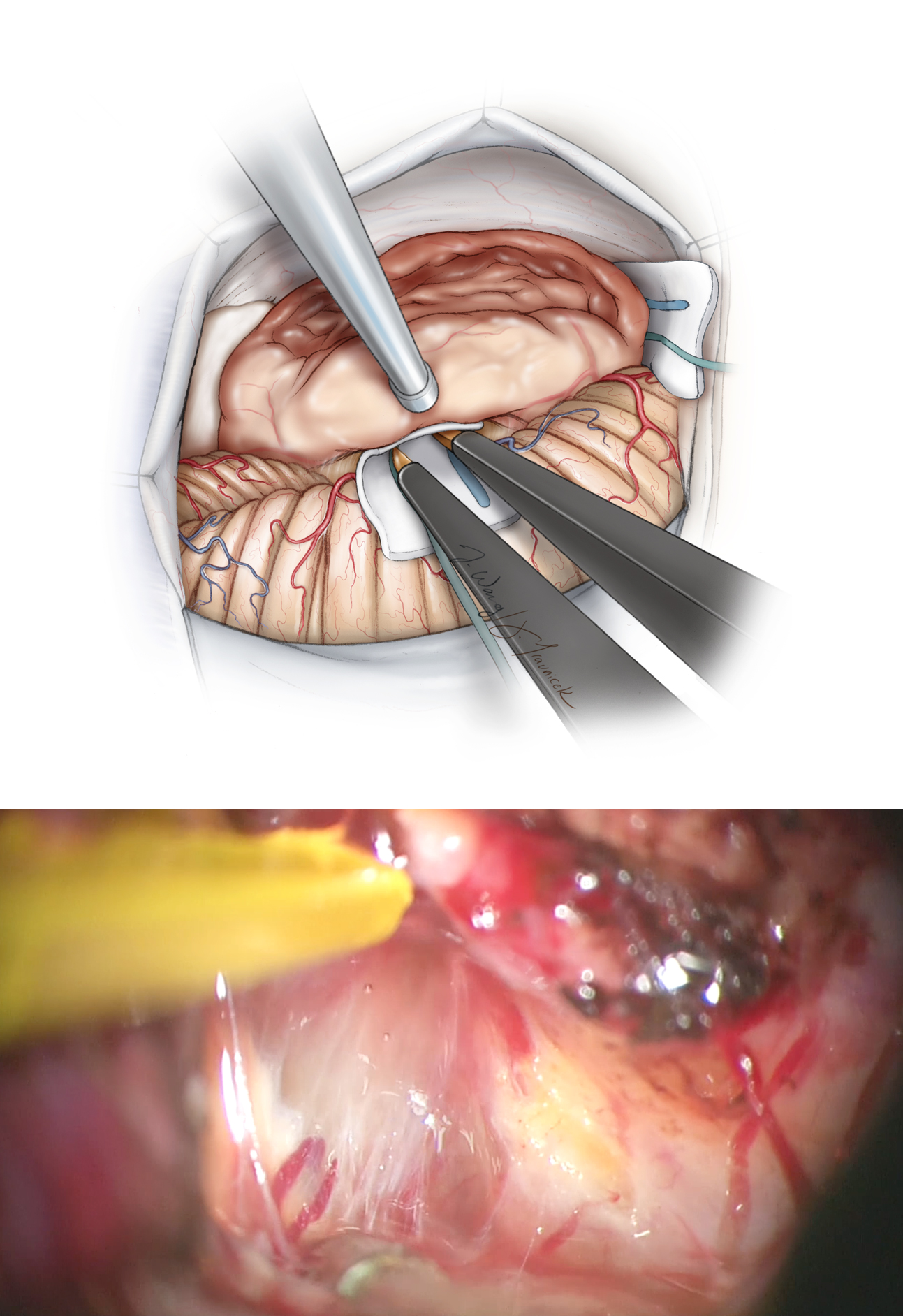 "Figure 12: Cottonoid patties are used to ""wipe"" the middle cerebellar peduncle away from the mobilized tumor capsule where the pial planes are not preserved (top sketch). If the pial planes are not recognizable at one point, the dissection is diverted to another location (the poles of the tumor) where the planes are more recognizable. If the arachnoid planes are intact (lower photo), the microforceps are used to mobilize the pia away from the tumor. The small pial vessels are protected when possible and coagulation minimized. Pial bleeding is controlled via gentle tamponade using thrombin-soaked Gelfoam pledgets and irrigation fluid."