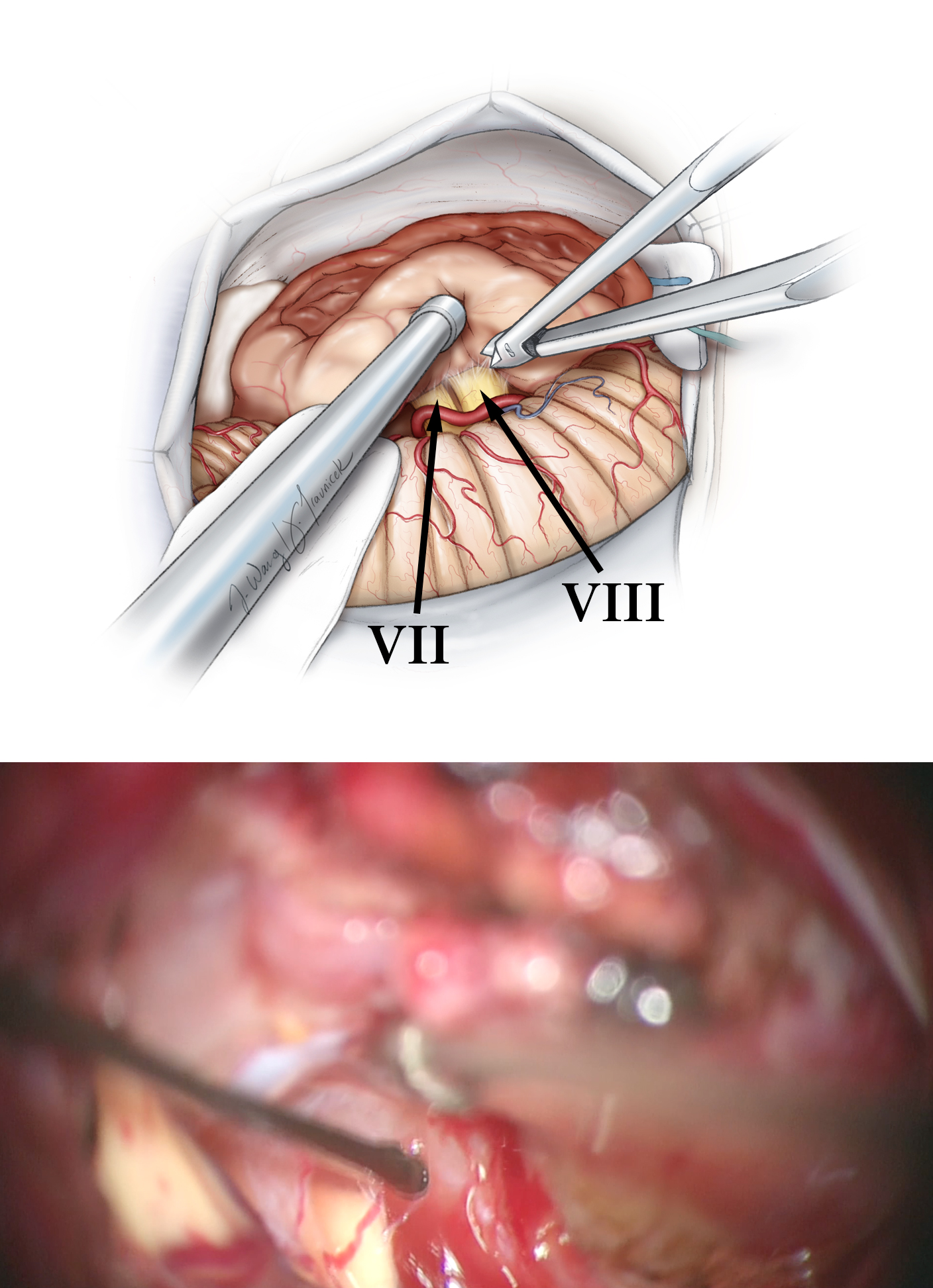 Figure 13: Sharp dissection techniques and attentive internal decompression of the residual tumor will facilitate mobilization of the capsule. The nerve is stimulated at 0.07 mA along its length so that its path on the tumor capsule can be tracked. I place gentle tension on the tumor capsule and then peel the nerve away from the tumor (top image). CN VIII is identified and sacrificed in patients with larger tumors after its stimulation mapping (bottom image).