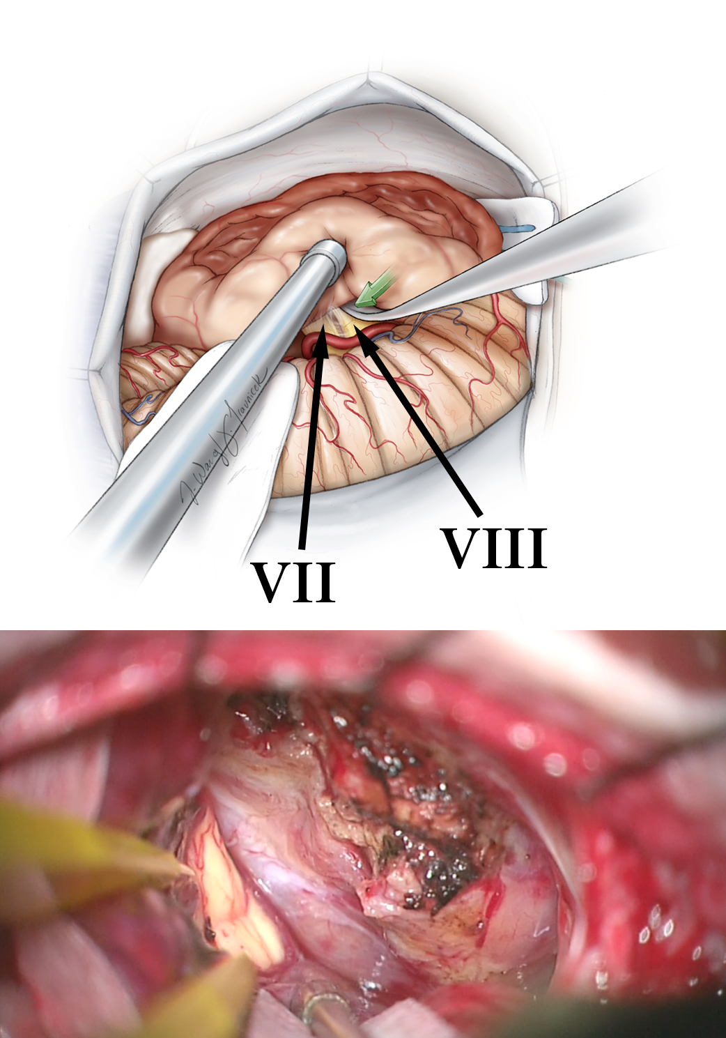 Figure 14: The suction device places the tumor capsule under gentle tension while the nerve is carefully mobilized away from the capsule. Preservation of CN VIII is possible in patients with medium size tumors (top image). Intensive tumor debulking and meticulous hemostasis are hallmarks of efficient VS surgery (bottom image) while the pial planes are preserved.