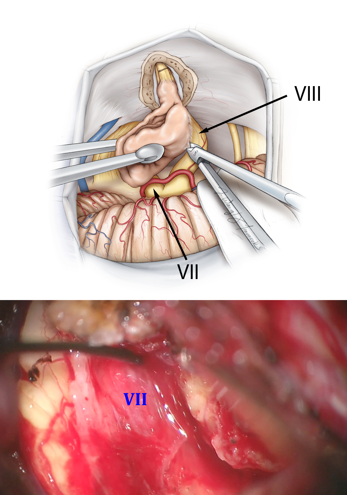 Figure 19: The capsule is dissected away from the nerves. Any injury to the facial nerve requires an increase in the stimulation intensity to map the nerve. This finding indicates the need to avoid further dissection of the nerve and plan a radical subtotal removal of the tumor. The labyrinthine artery is preserved if CN VIII has remained intact. The arachnoid membranes over CN VII are left intact (Modified and Redrawn from Tew, van Loveren, Keller*).