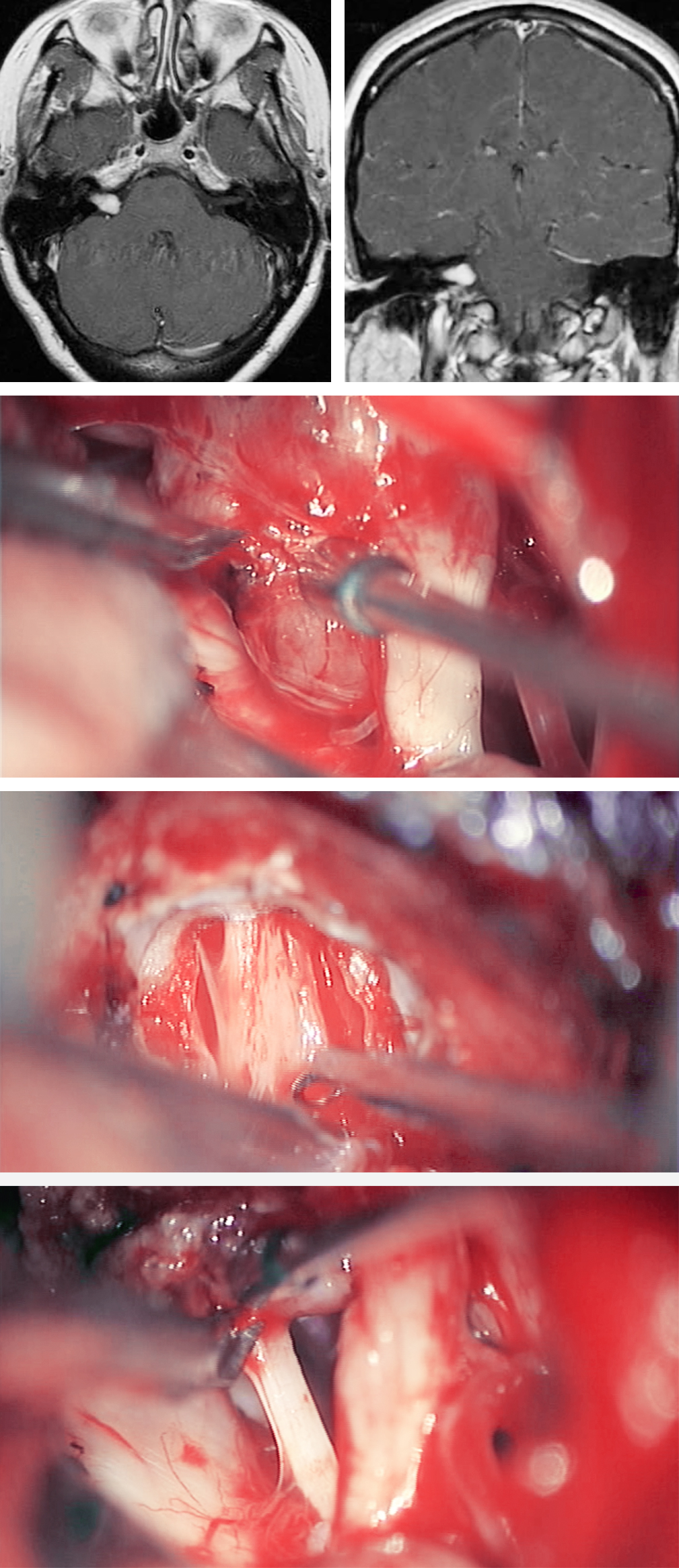 Figure 23: A right-sided 1.7-cm VS was removed via the retromastoid approach. Note the relationship of the tumor to CN VIII (second photo). The bottom two photos demonstrate resection of the intracanalicular and intracisternal components of the tumor. The facial nerve was dissected free of the tumor capsule in the bottom photo.