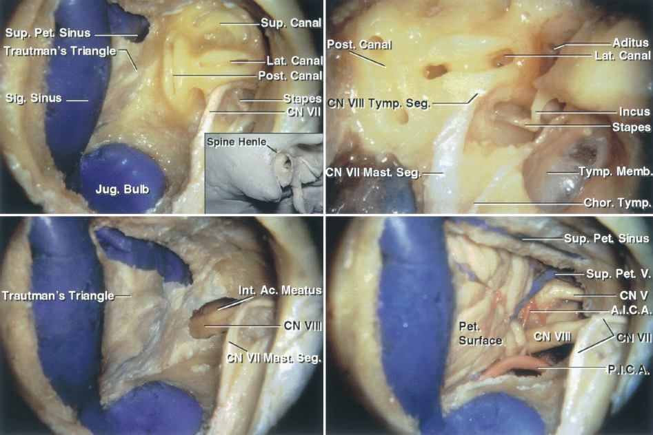 Figure 1: The TL approach is summarized. The spine of Henle at the posterosuperior margin of the external meatus (inset image) is a superficial landmark that estimates the deep location of the lateral semicircular canal and the tympanic segment of the facial nerve. The mastoidectomy has been completed and the dural venous sinuses and the facial nerve are skeletonized while a thin layer of bone is left over them. The semicircular canals are apparent. The dura, bounded by the sigmoid and superior petrosal sinuses, the jugular bulb, and the labyrinth, is the Trautmann triangle (left upper image). The tympanic segment of the facial nerve courses between the lateral canal and the stapes in the oval window, and then turns inferiorly as the mastoid segment (right upper image). The semicircular canals and vestibule have been resected and the dura covering the IAC has been incised to expose the cranial nerve (CN) VII/VIII complex (left lower image). The dura has been further resected to reveal the CP angle. The limits of the exposure include an anteriorly positioned sigmoid sinus, a high-riding jugular bulb, or a low middle fossa plate. The jugular bulb may be situated as high as the posterior wall of the IAC and be found at the posterior meatal wall during the TL and RS approaches (images courtesy of AL Rhoton, Jr).