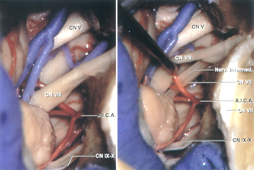Figure 2: The intradural anatomy of the CP angle via the TL approach is shown. The jugular bulb may obstruct the view of the lower cranial nerves entering the jugular foramen (left image). CN VIII has been mobilized to expose the facial nerve (images courtesy of AL Rhoton, Jr).