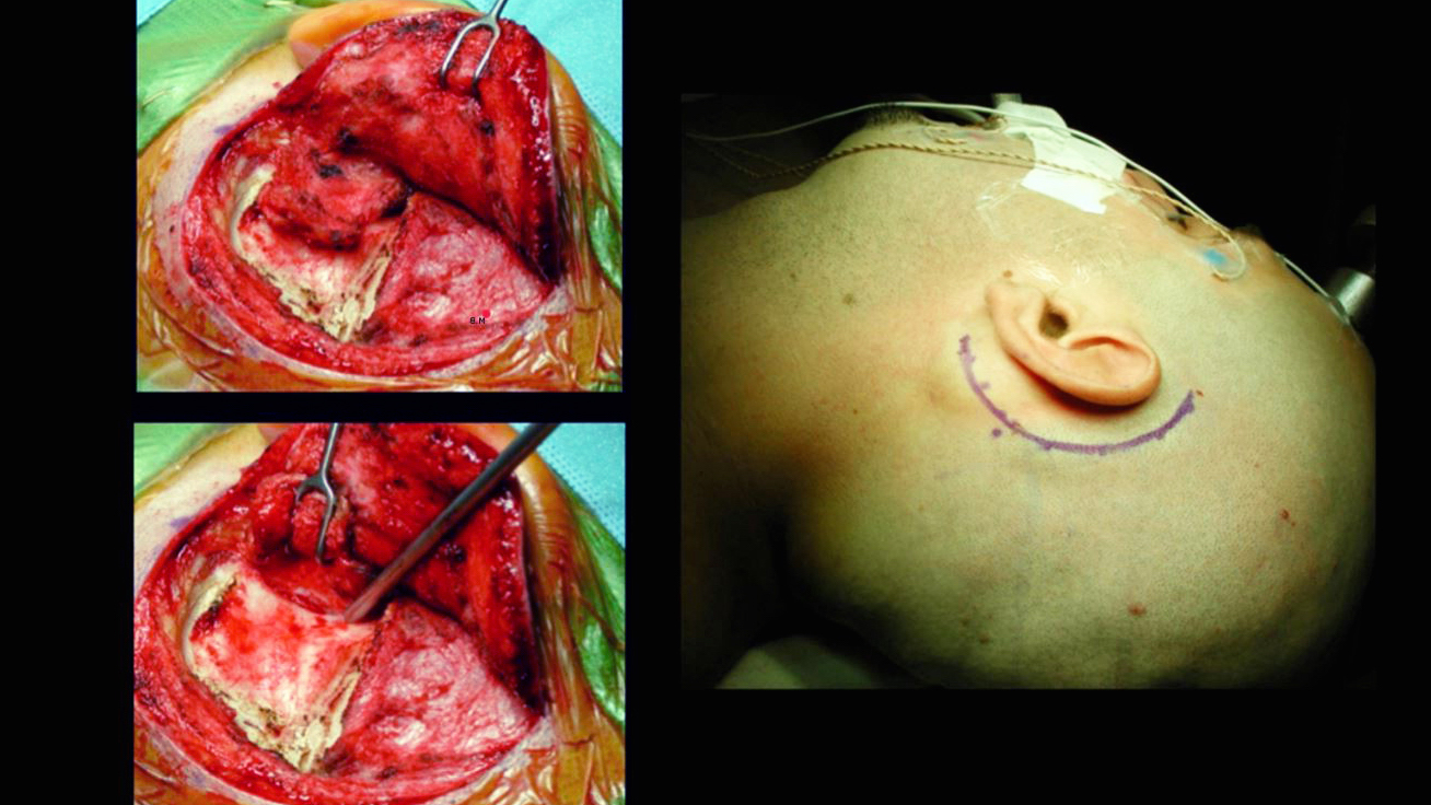 Figure 3: The head is rotated toward the opposite side. If the patient has a supple neck, up to 70 degrees of rotation may be applied, whereas if the patient has limited neck mobility, a shoulder roll can compensate for the lack of rotation. The steps for scalp dissection and anterior reflection of the suboccipital muscles are shown in the inset images.