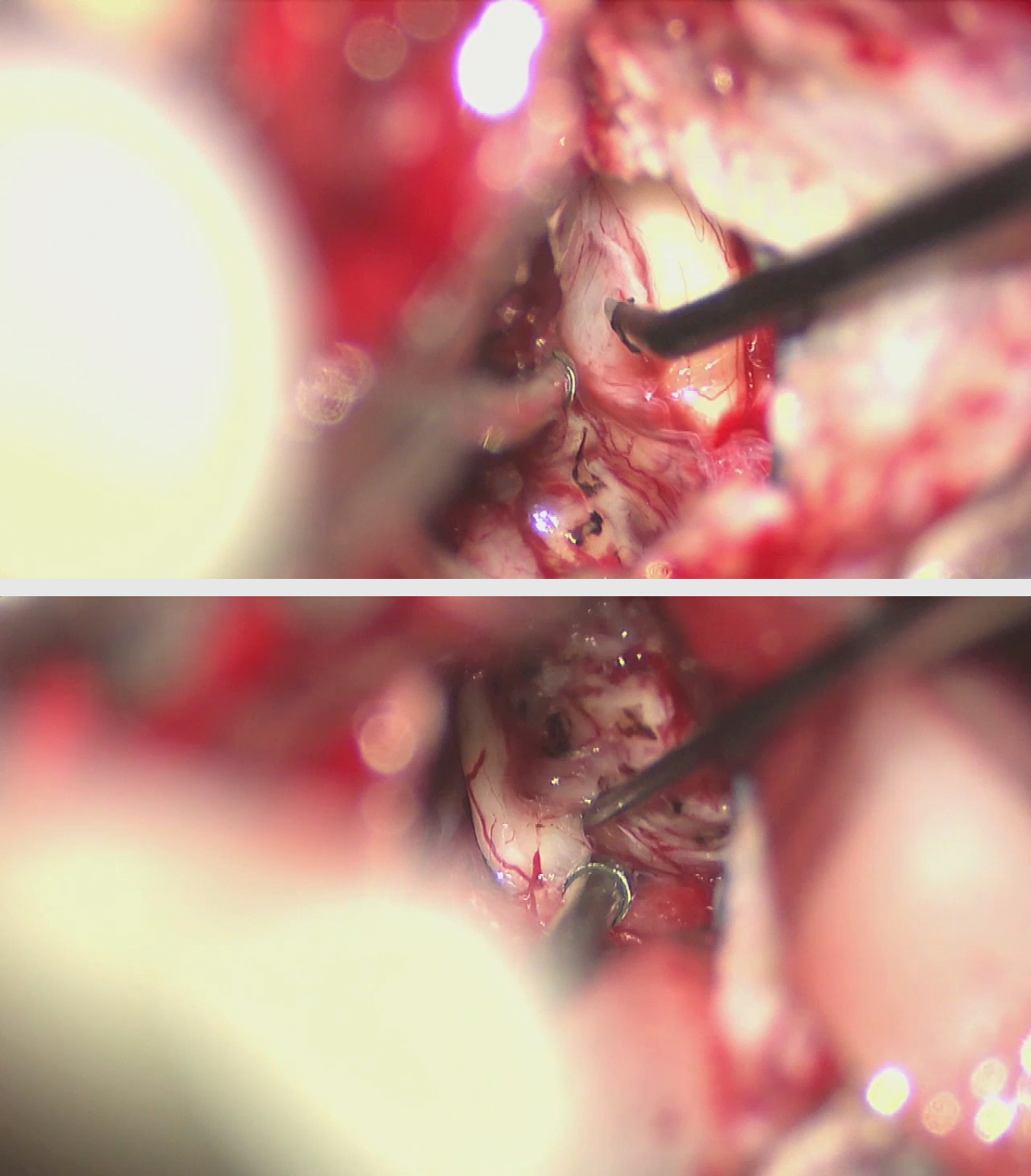 Figure 13: The trigeminal nerve is identified and carefully released from the superior pole of the tumor capsule (top image). The cochlear nerve at the lower pole of the capsule is stimulated (bottom image) and transected in patients with larger tumors and nonserviceable hearing.