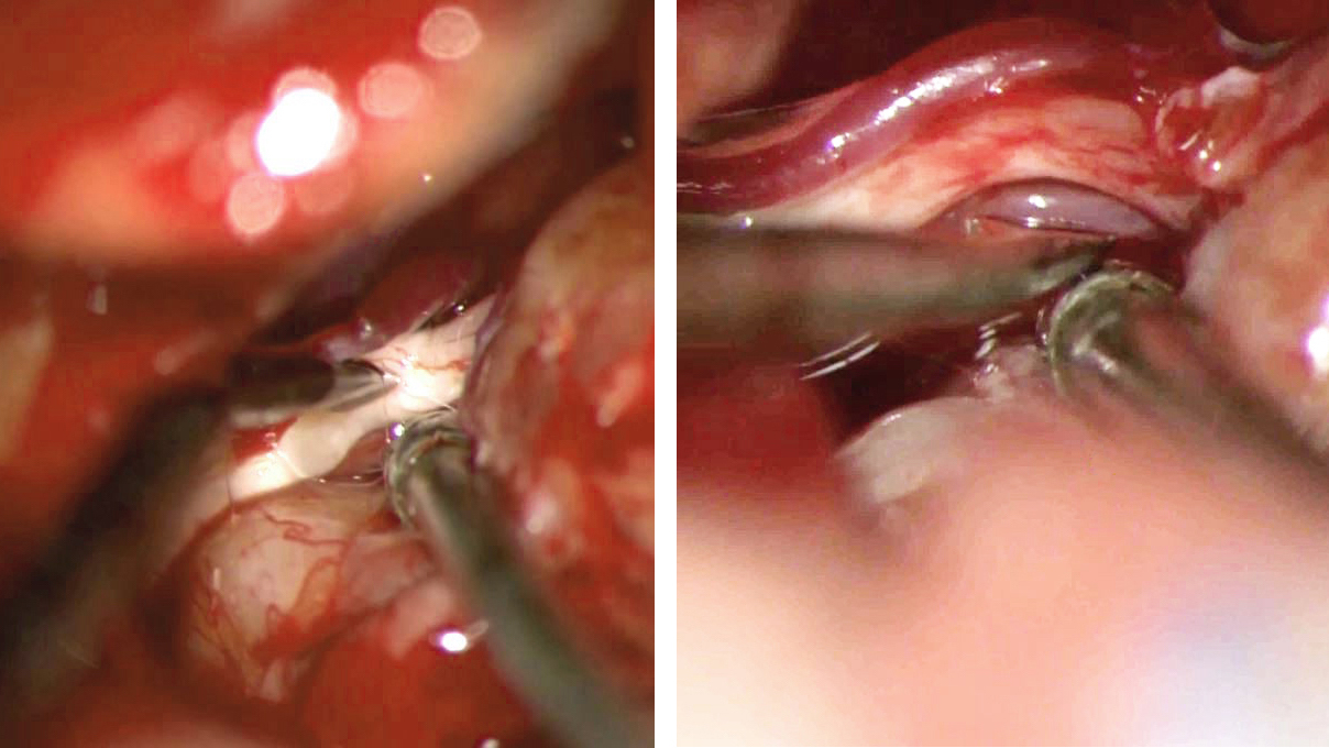 Figure 14: The facial nerve is progressively dissected away from the anteroinferior surface of the tumor capsule.