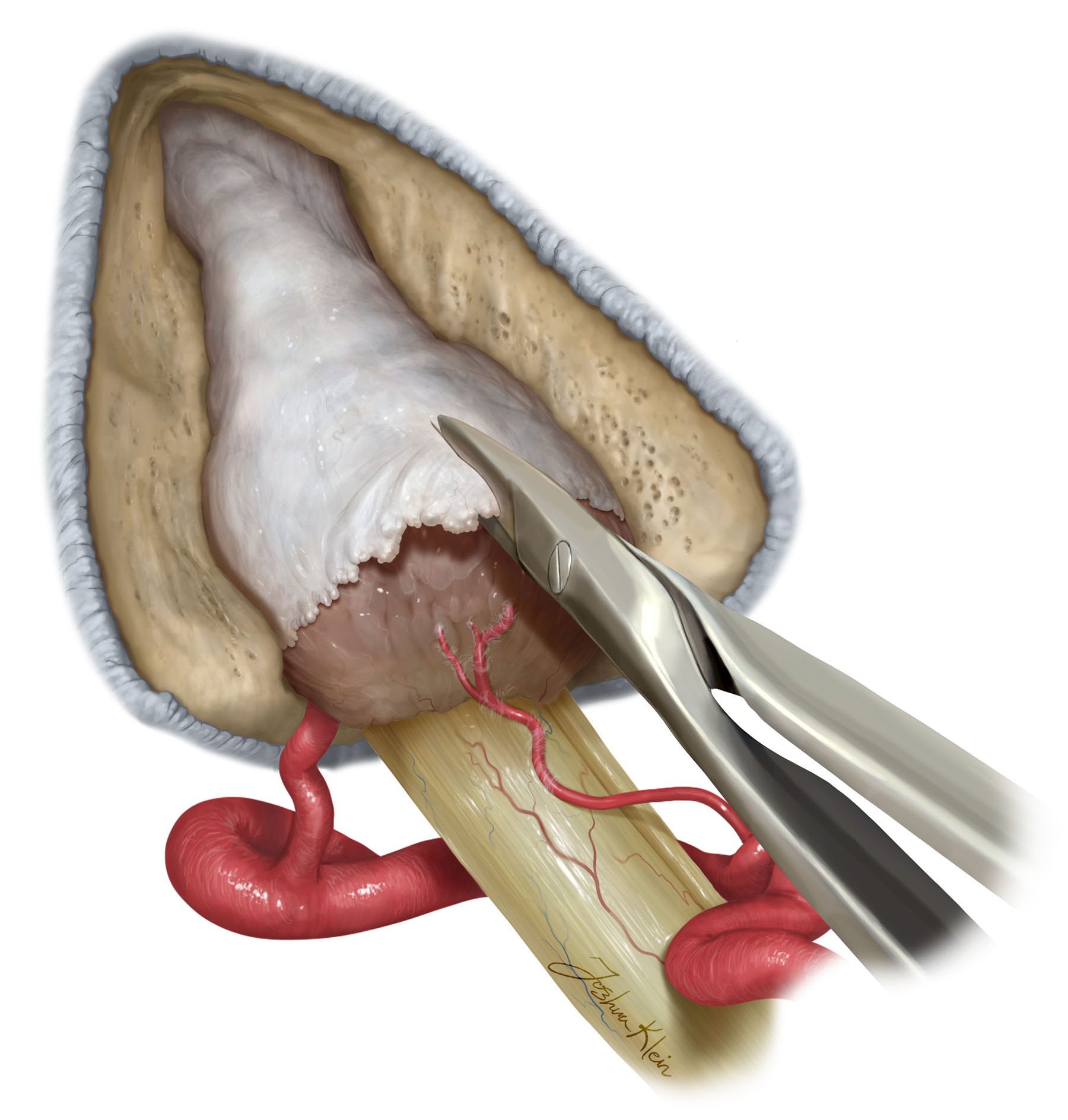 Figure 6: The dura of the internal auditory canal is opened via sharp dissection.