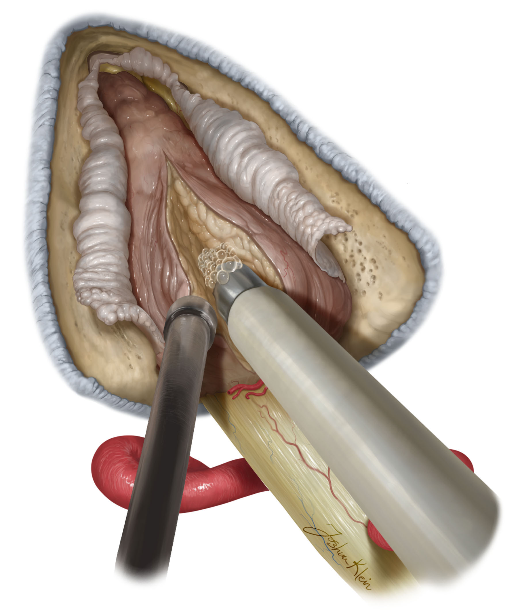 Figure 7: The arachnoid layer containing the blood supply to the vestibulocochlear nerve is dissected from the tumor capsule to ensure preservation of hearing. The tumor is then debulked.