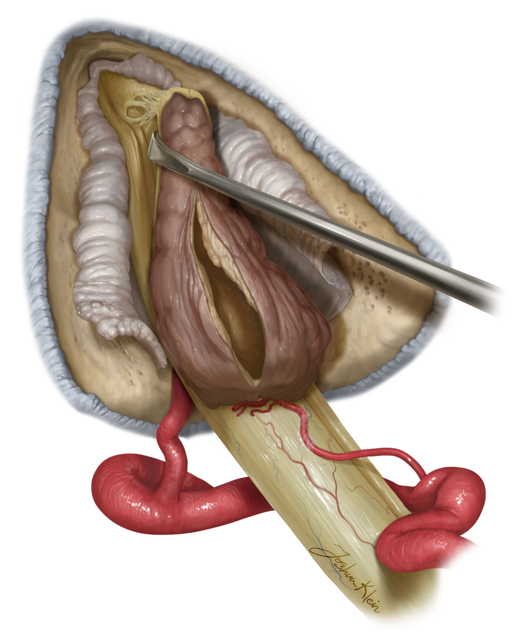 Figure 8:The superior vestibular nerve from which the tumor typically arises is sectioned/avulsed lateral to the tumor to ensure that residual tumor is not left behind.