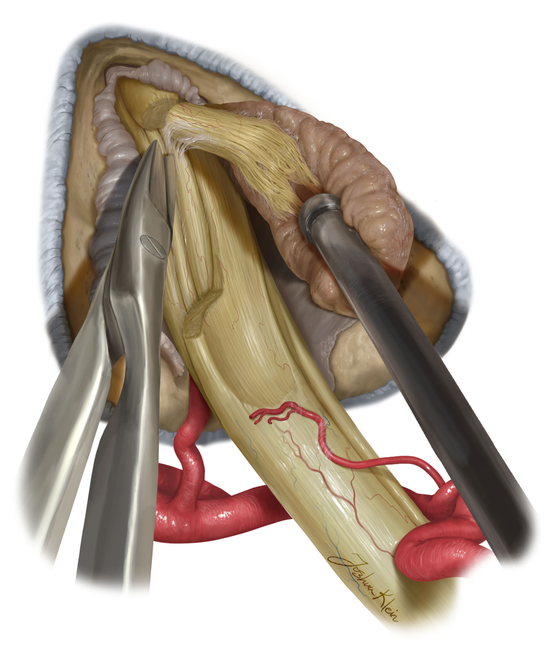Figure 10: Final attachments are dissected from the facial and inferior vestibular nerves. Physiologic preservation of the facial nerve is assessed by direct stimulation of the nerve.