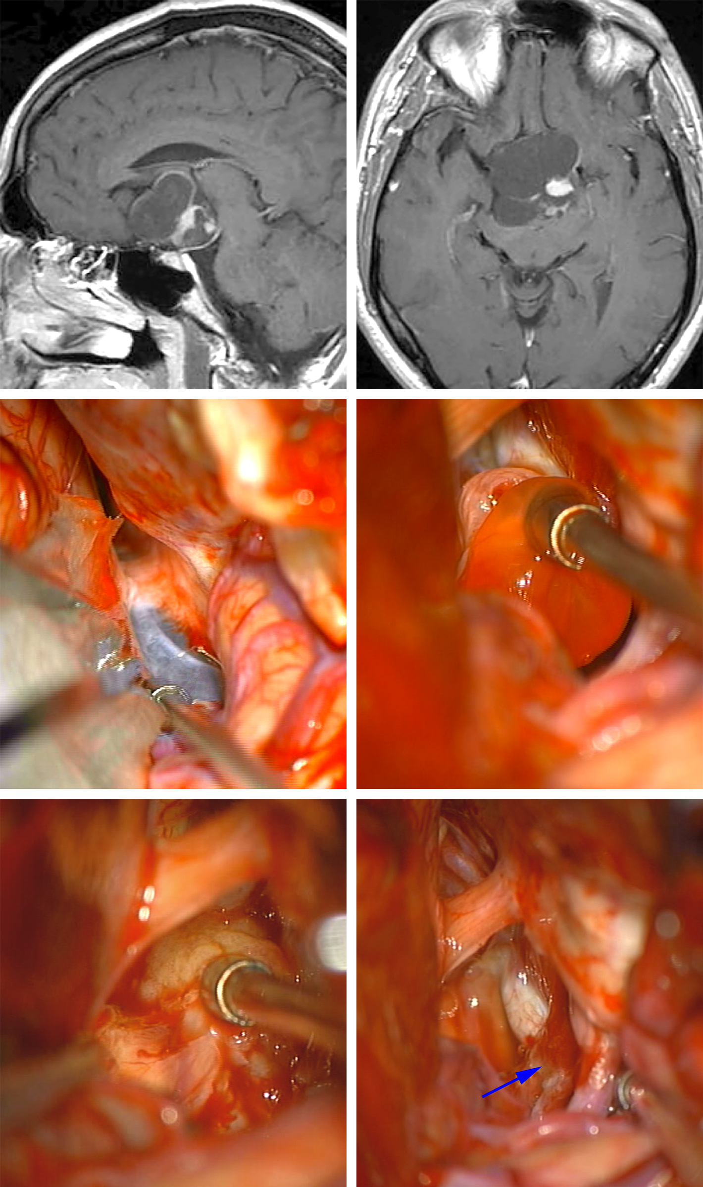 Figure 8: An anterochiasmatic cystic craniopharyngioma (first row of images) was resected via the pterional craniotomy. The ipsilateral optic nerve was decompressed via drainage of the cyst, and the capsule of the cystic components of the tumor was removed (middle row of images). The tumor nodule was sharply released from the hypothalamus (left lower image). The final resection result and the subfrontal operative trajectory are shown. The pituitary stalk (arrow) remained intact (right lower image).