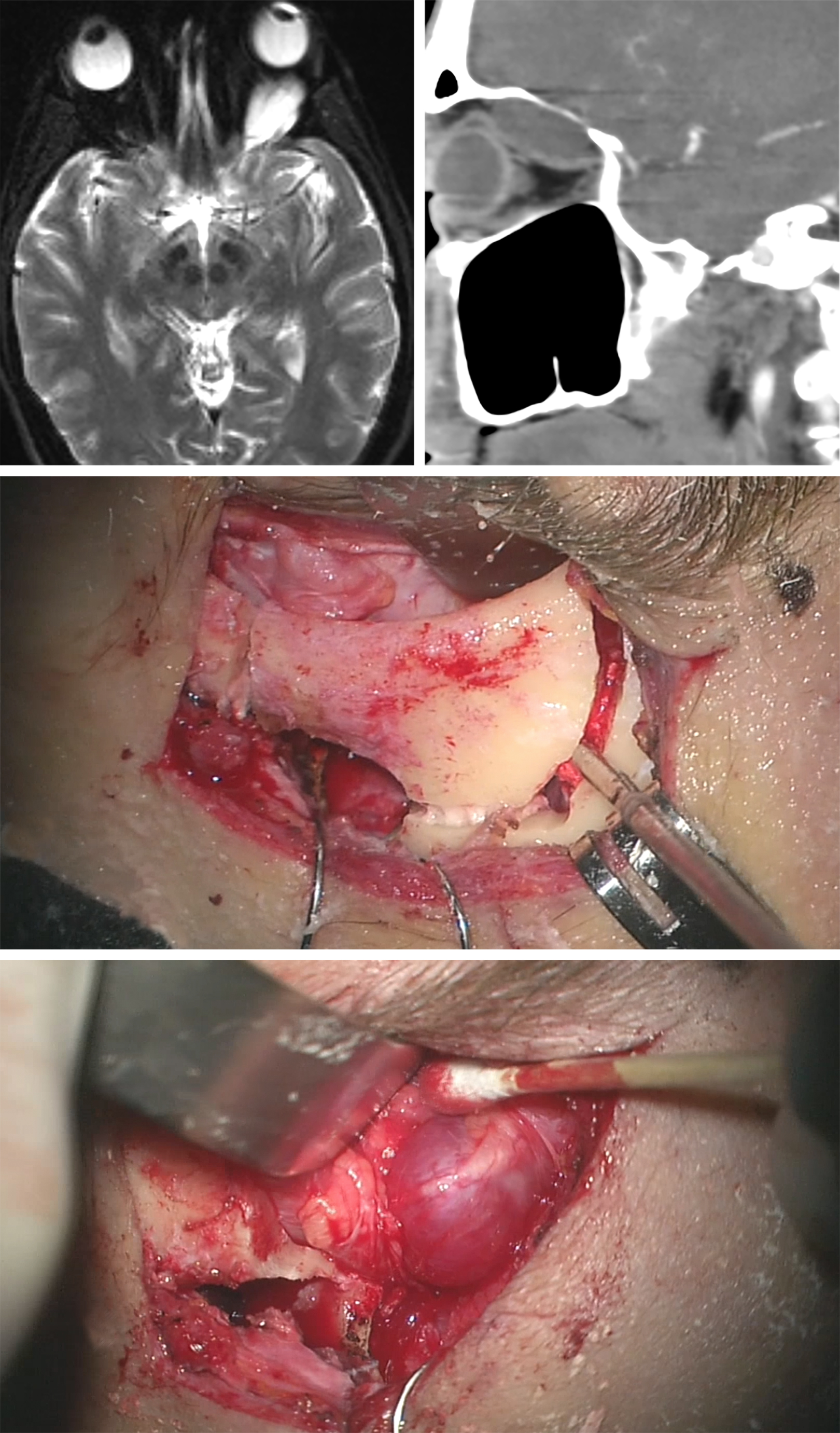 Figure 12: This schwannoma within the superior compartment of the orbit led to proptosis. I decided on a supraorbital craniotomy with an orbital rim osteotomy (middle photo) to remove the lesion. Note the involved nerve on the surface of the tumor (bottom photo).