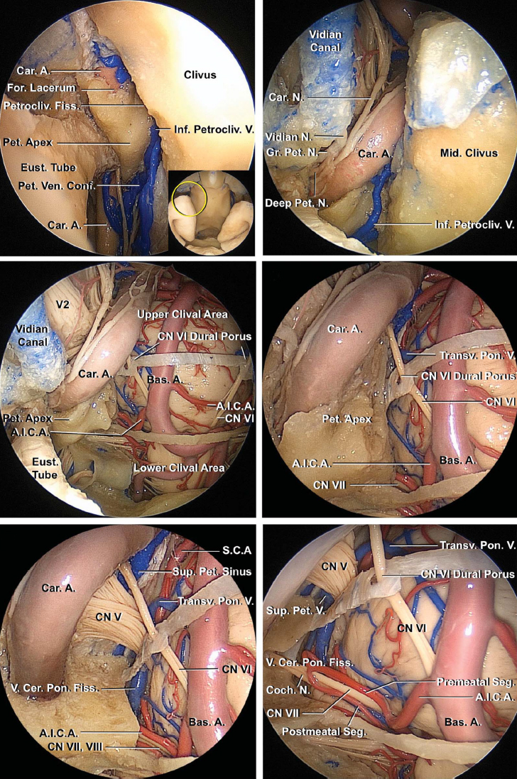 Figure 7: An endoscopic view of the middle clivus is shown. A 45-degree endoscope is used to examine the foramen lacerum. The Vidian canal has been dissected (upper rows of images). A right lateral clivectomy was accomplished and the adjacent dura was removed. A dural bridge demonstrates the borders between the upper and middle clivus, and a thin bony bridge separates the middle and lower clivus (middle row of images). A closer view using a 45-degree endoscope directed laterally is also shown (left lower image). The petrous apex and the bone below the distal carotid canal have been removed to expose the cisternal segments of the cranial nerve VII/VIII complex (right lower image) (images courtesy of AL Rhoton, Jr).