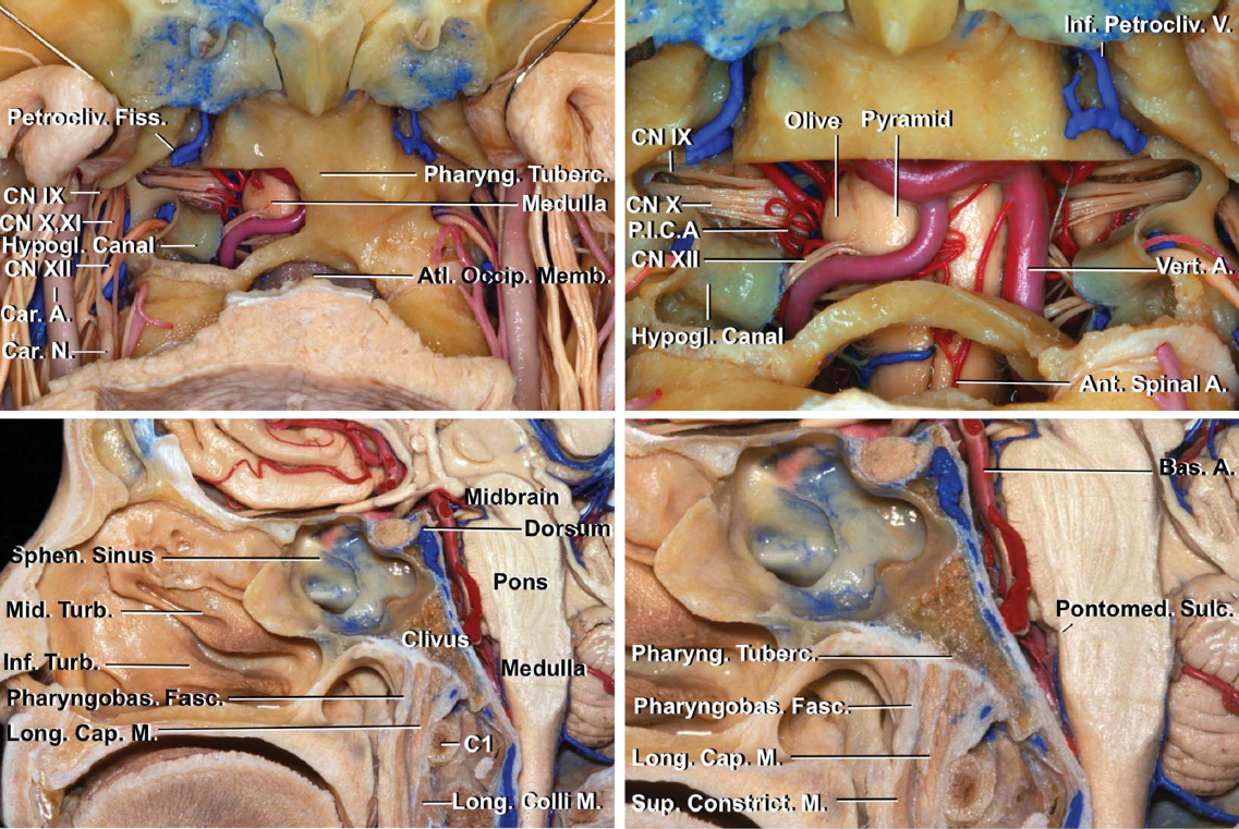 Figure 8: A right lower clivectomy is demonstrated (left upper image). Note the anatomy of the lower cranial nerves. A bilateral lower clivectomy is also shown (right upper image). The anterior surface of the medulla and the vertebral, posterior inferior cerebellar, and anterior spinal arteries are evident (upper row of images). Midsagittal sections of other specimens show the relationship between the posterior nasopharynx, its associated muscles, and the lower clivus (lower row of images) (images courtesy of AL Rhoton, Jr).