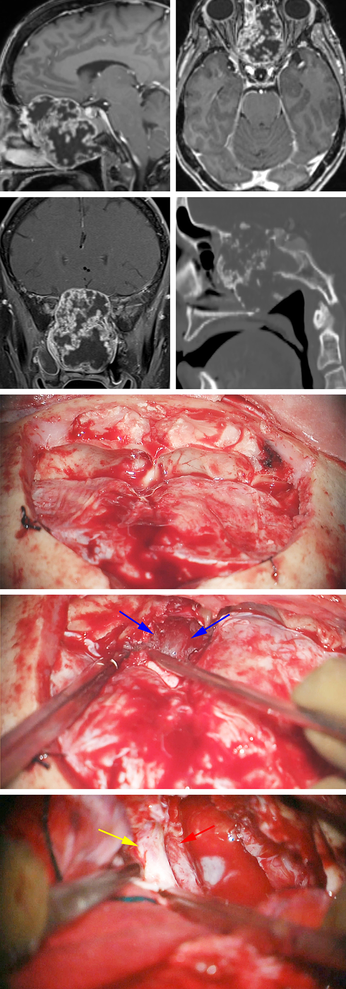 Figure 14: A large anterior skull base chondrosarcoma is evident. Note the erosive pattern of bone changes on the sagittal CT scan (upper images). This tumor was resected via combined bifrontal (middle photos) and endoscopic transnasal routes. The tumor eroding through the cribriform plate is marked with blue arrows (second intraoperative photo). Bilateral optic nerves (left nerve covered by its dura, yellow arrow) and ICAs (red arrow) were exposed via the bifrontal route at the end of the resection (lower photo).