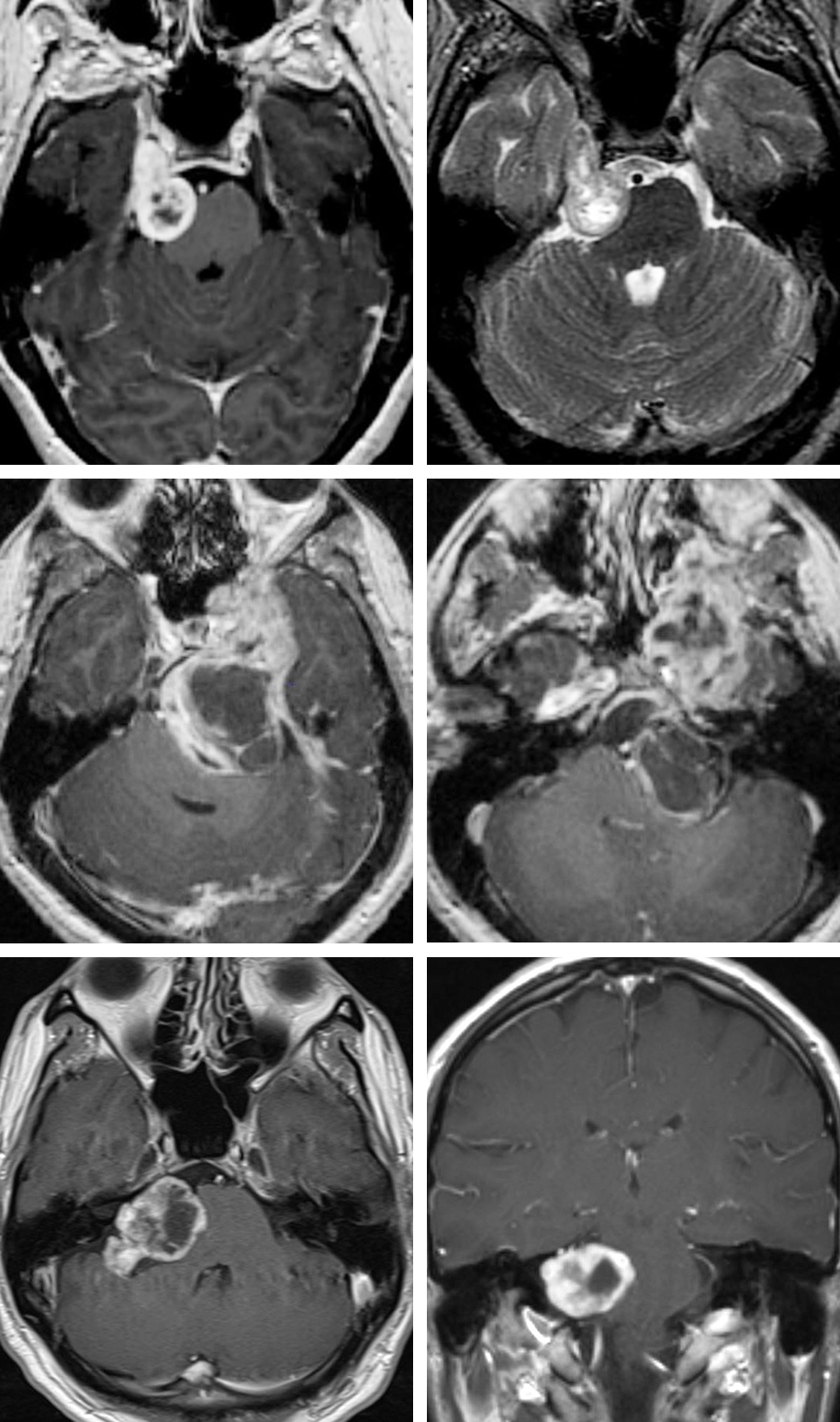 Figure 1: Schwannomas present as well-circumscribed, heterogeneously enhancing lesions that are isointense or hypointense on T1-weighted and hyperintense on T2-weighted images. They do not harbor the dural tail associated with meningiomas. Enlargement of the internal auditory meatus signifies a vestibular schwannoma. The MR images of the upper row indicate a classic trigeminal schwannoma with extension into the Meckel's cave. The middle row demonstrates a giant tumor with intraorbital and extracranial or infratemporal extensions. The bottom photos show an isolated trigeminal schwannoma within the cerebellpontine angle.