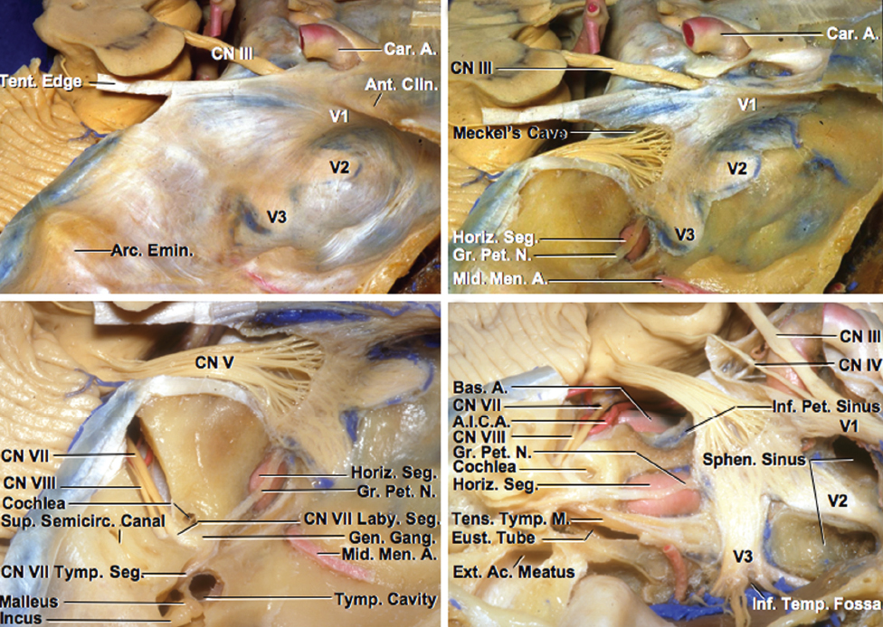 Figure 3: Anatomy of the trigeminal nerve over the Meckel's cave is shown. The bone over the petrous ICA and surrounding structures has been removed to elucidate the location of these structures even though they are not exposed at surgery. These structures should be protected during microdissection. Note the need for disconnection of the superior petrosal sinus for reaching the cererbellopontine angle via the middle fossa exposure around the Meckel's cave (images courtesy of AL Rhoton, Jr).