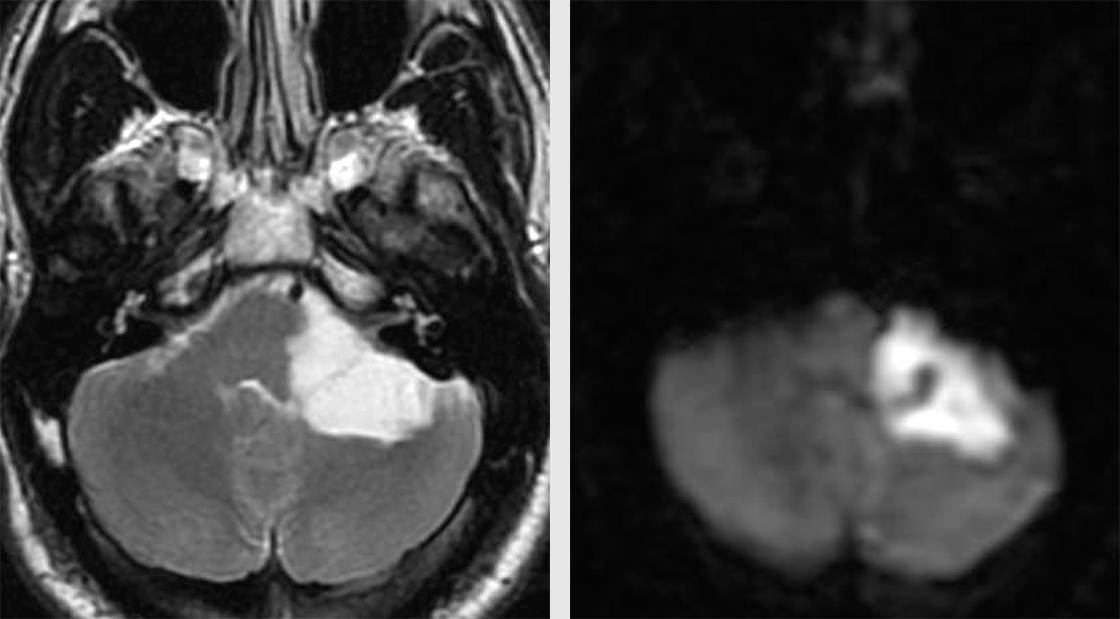Figure 1: This CP angle tumor demonstrates the T2 hyperintensity characteristic of CSF and DWI hyperintensity, nearly pathognomonic of epidermoid tumors.
