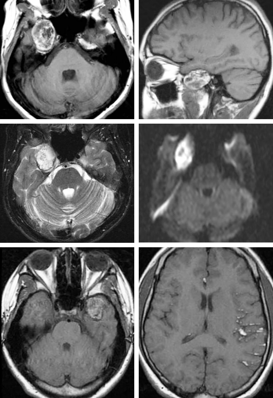 Figure 2: This right-sided temporal dermoid lesion demonstrates T1 hyperintensity (images in upper row) consistent with its fat content. The appearance of T2- and diffusion-weighted sequences are shown in the images of the middle row. Since the texture of dermoids is more solid than epidermoids, dermoids are less likely to grow around neurovascular structures and are more likely to cause focal mass effect. Some dermoid tumors may show nodular enhancement. The pattern of a left temporal dermoid rupture leading to disseminated subarachnoid and intraventricular fat droplets is shown in the images of the bottom row.