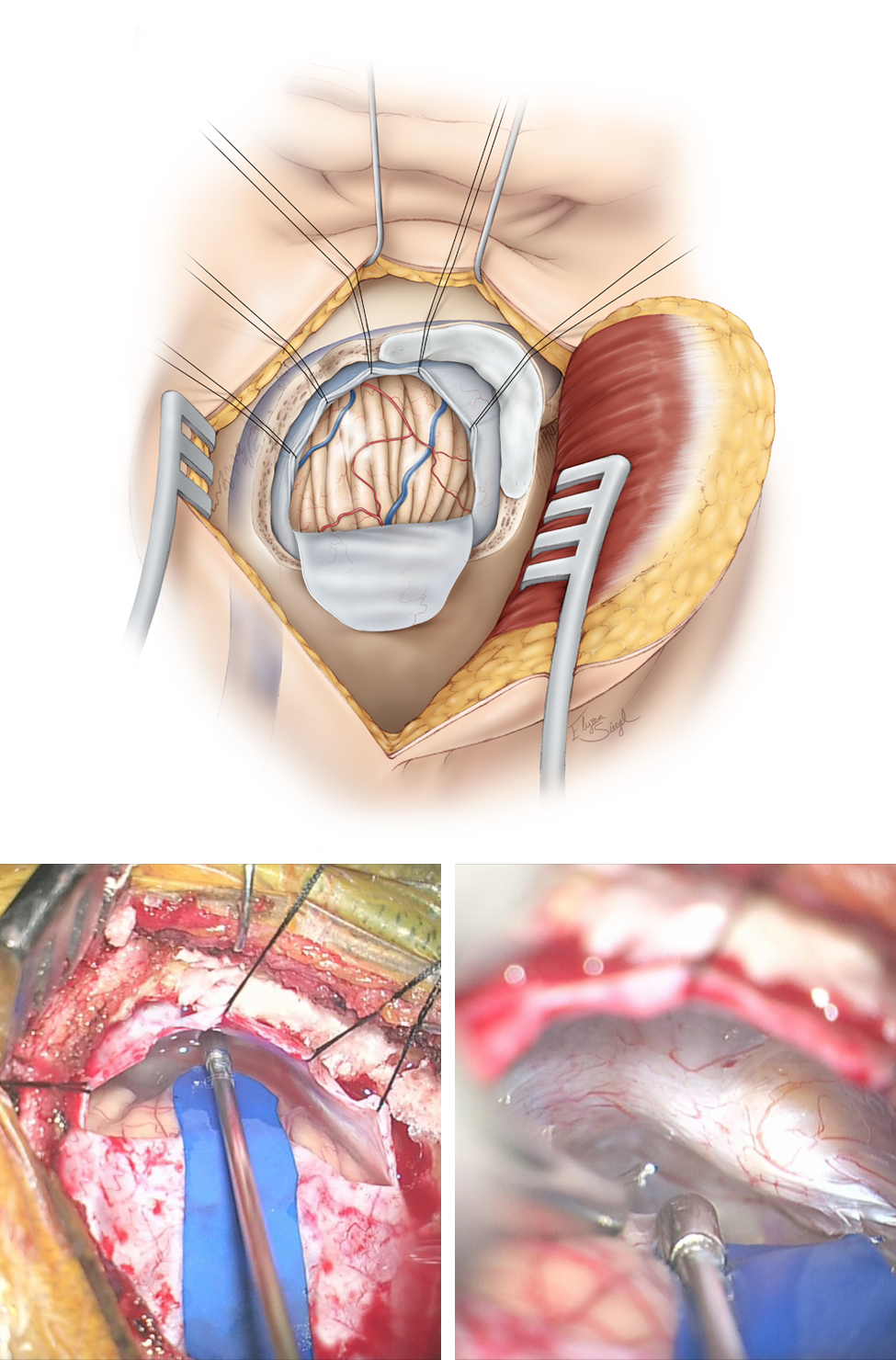"""Figure 7: Please note the use of fishhooks and a cerebellar retractor to effectively mobilize the scalp and expand the bone exposure. Additional bone over the transverse and sigmoid sinuses is removed using an air drill. Bone removal over the sigmoid sinus is important for its mobilization. All mastoid air cells are generously waxed. A dural incision is then made parallel and adjacent to the transverse and sigmoid sinuses (upper sketch). This style of dural opening prevents dessication of the dural flap from the heat of the microscope. The dural edges along the venous sinuses are tented up using retraction sutures to widen the operative corridor toward the CP angle by mobilizing the sigmoid sinus laterally, decreasing the need for cerebellar retraction. Further lumbar CSF drianage avoids cerebellar herniation through the craniotomy defect. The petrous-tentorial junction is pursued; a piece of rubber glove (""""rubber dam"""") is used to allow the instruments to glide over the cerebellum (lower row of images)."""