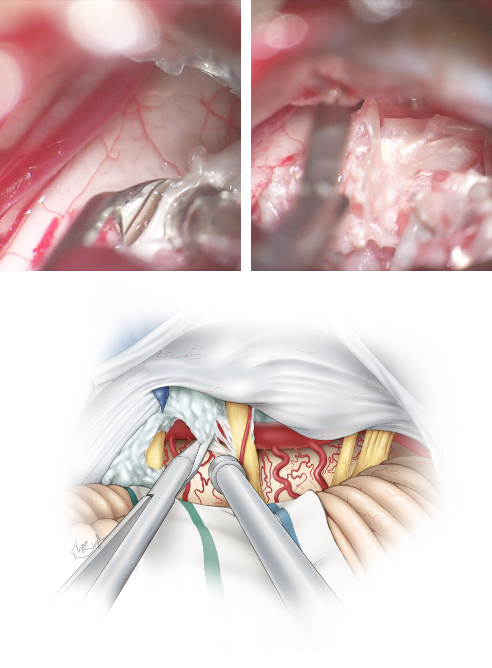 """Figure 10: Tumor debulking proceeds from medial to lateral directions within the CP angle. I use an angled """"pancake dissector"""" to mobilize the capsule (left upper image), and then use the pituitary rongeurs to remove the tumor flakes mobilized into the resection cavity (right upper image). Sharp dissection is used to excise the tumor capsule from the neighboring neurovascular structures (lower sketch). Although gentle removal of the capsule is attempted, aggressive handling of the cranial nerves is not advised. Encased perforating vessels are left untouched."""