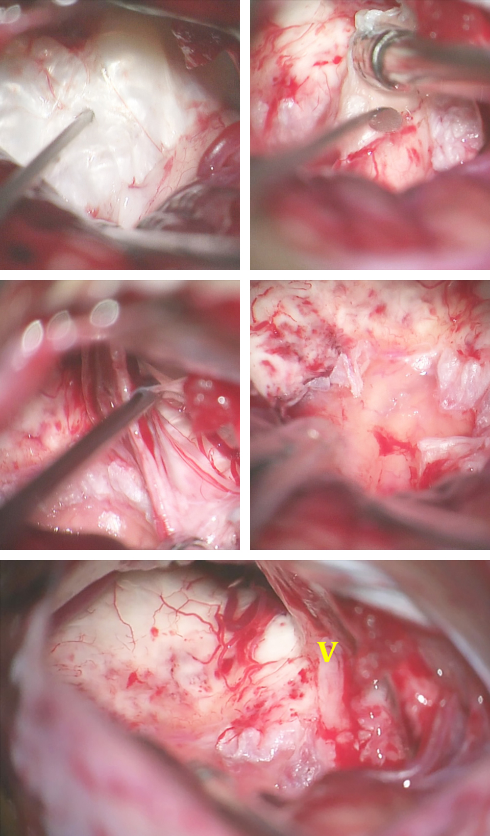 Figure 12: Epidermoid lesions of the CP angle may adhere to the brainstem around the root entry zone of CN V. The top row images show the invasion of the pia at this location. The left middle image demonstrates the dissection of the lesion from the nerve. When the tumor invades the parenchyma over a significant area, a layer of the capsule is left behind (right middle image). The final operative field is indicated in the lower photo. The initial embryologic point of tumor attachment at the root entry zone of CN V is evident.