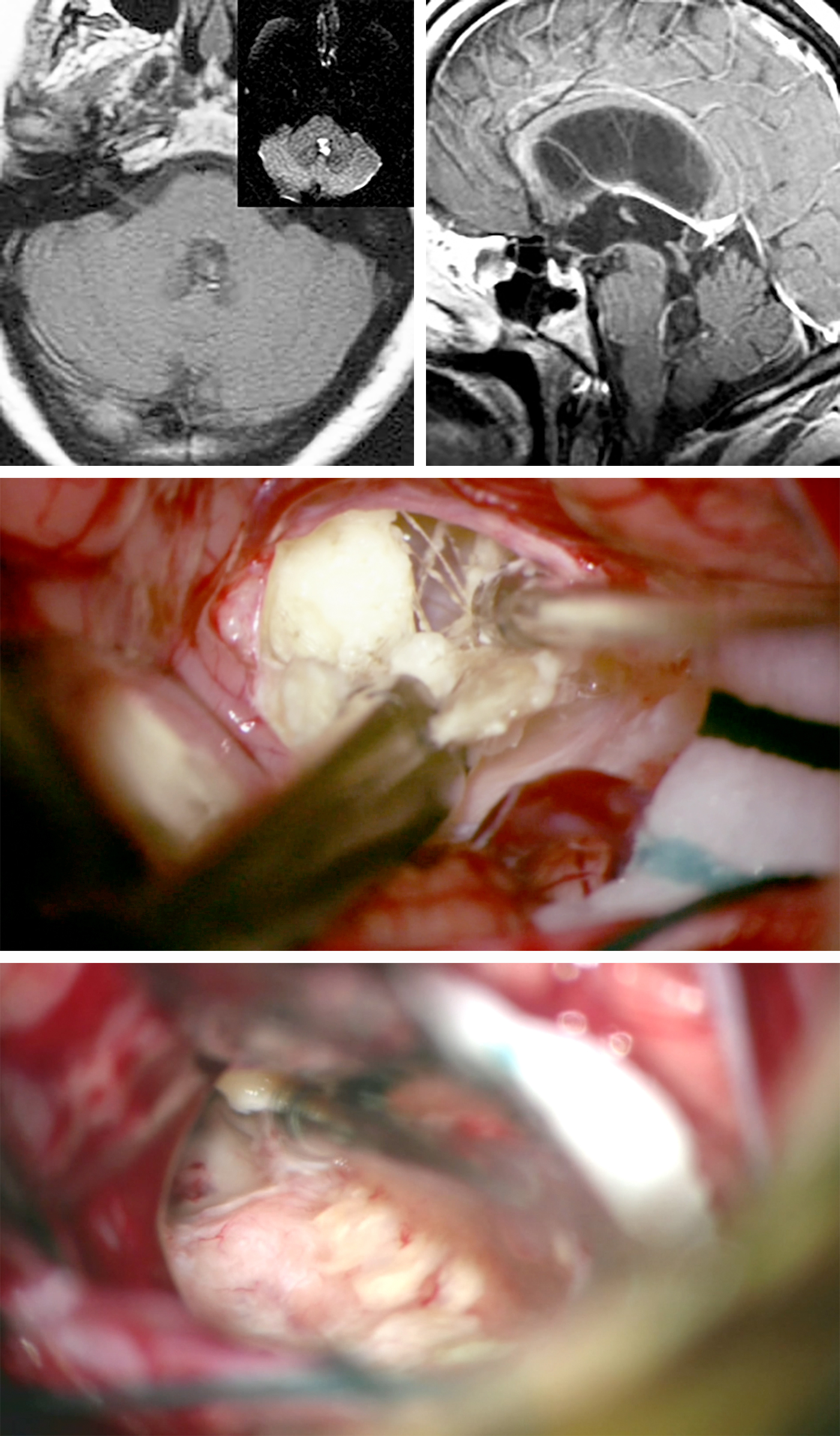 Figure 14: A fourth ventricular dermoid tumor in a patient with intractable headaches and mild hydrocephalus is shown. Note the subtle punctate T1 hyperdensities within the lesion, characteristic of fat droplets (top images). The lesion was accessed via the telovelar approach. The tumor contained hair (middle photo). Upon complete removal of the contents of the lesion's capsule, the aqueduct was visible (bottom photo).