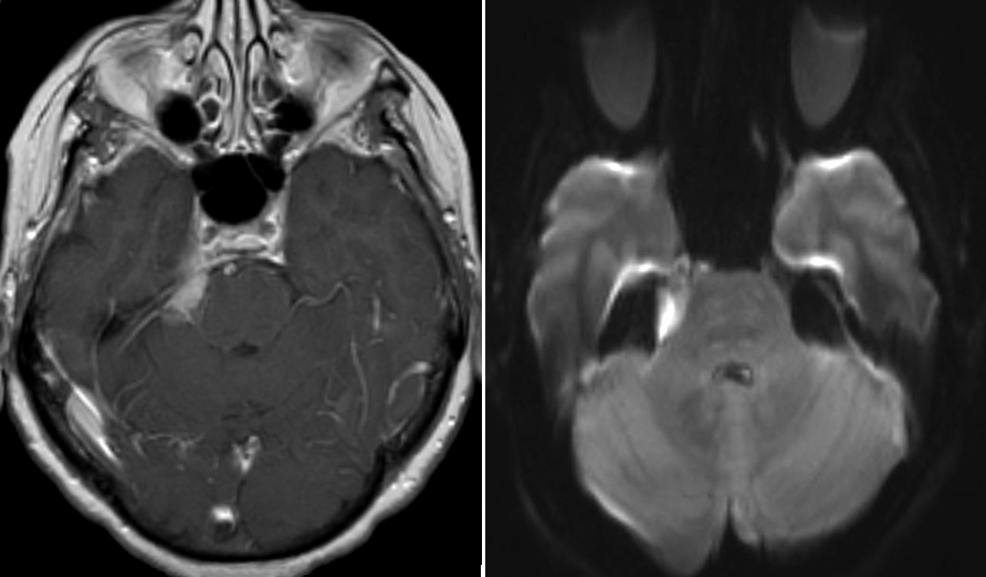 Figure 3: A small right tentorial meningioma (left image) and CP angle epidermoid (right image-diffusion) causing TN. Both patients underwent resection.