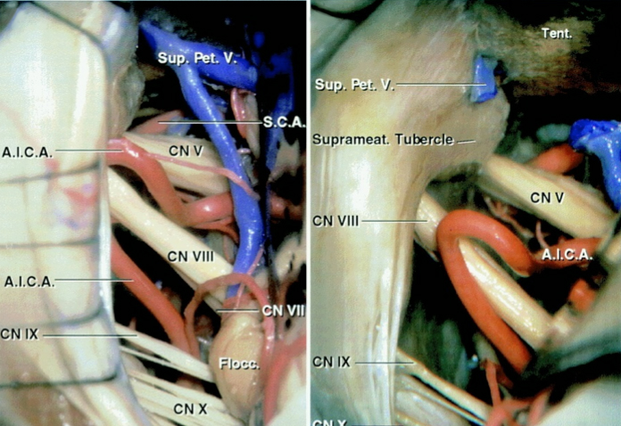 Figure 4: Exposure of cerebrovascular structures within the left cerebellopontine angle through the retromastoid approach. Please note that CN V is deeper within the operative field and further away from the surgeon, whereas  the CN VII/VIII complex is more superficial and follows an oblique inferior to a superior trajectory.  This anatomical information should readily allow identification of these nerves (Images Courtesy of AL Rhoton, Jr).