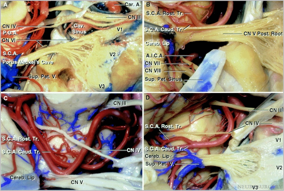 Figure 5: Relationship between the trigeminal nerve and the superior cerebellar artery (S.C.A.). The posterior root enters the midpons below the S.C.A. (A). The S.C.A. loops downward and contacts the posterior trigeminal root at the pontine junction (B). The rostral trunk loops downward after early bifurcation and indents the upper surface of the trigeminal nerve (C). The S.C.A. bifurcates above and away from the trigeminal nerve (D)(Images Courtesy of AL Rhoton, Jr).