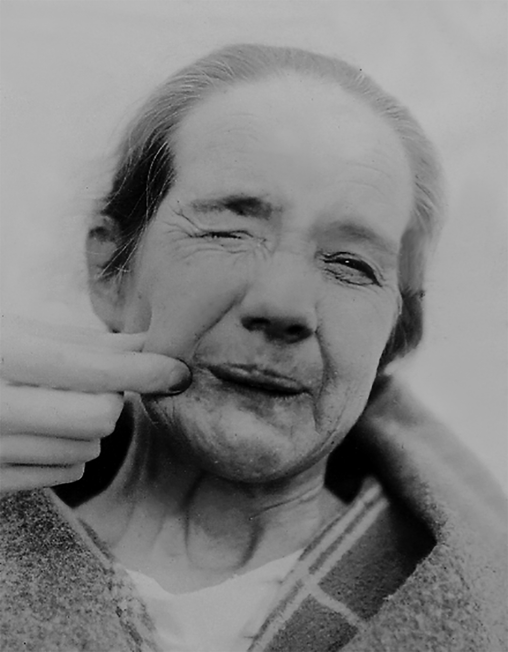Figure 1: One of Cushing's patients (Circa 1920). Cushing is triggering the spasms by pinching the right side of the patient's face.