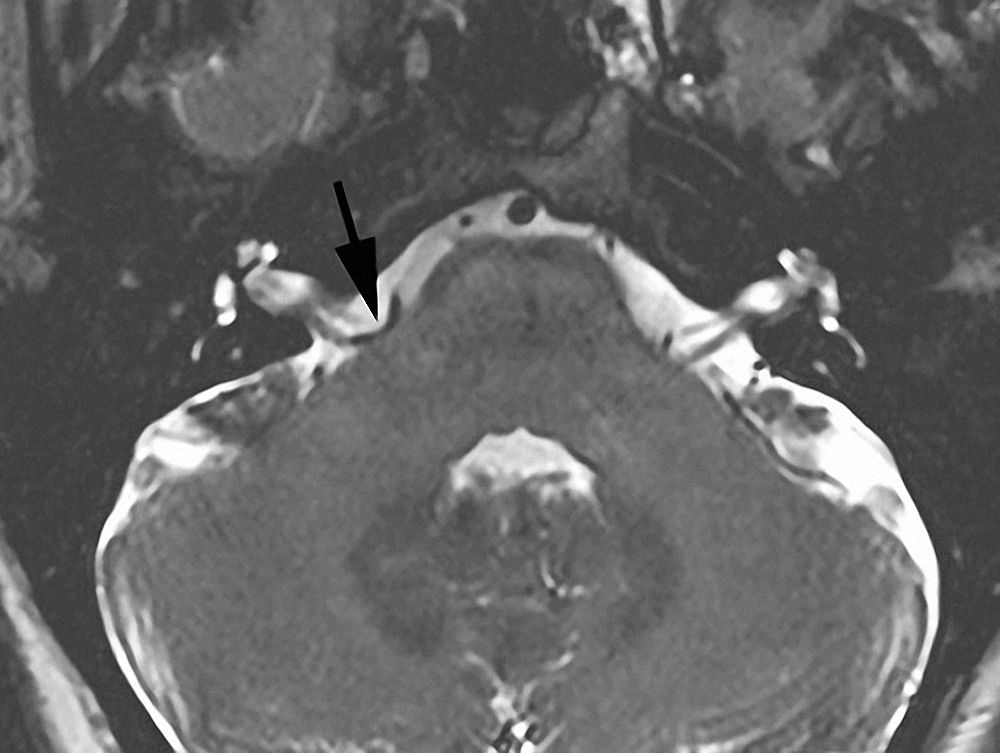 Figure 2: Axial T2-weighted MRI demonstrates a vascular loop (arrow) around the root exit zone of CN VII.