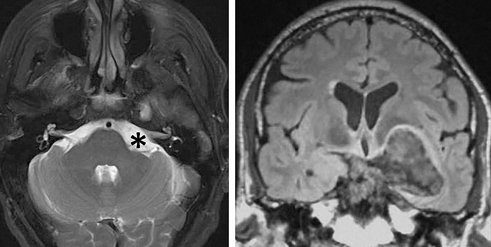 Figure 3: The only presentation of this large left-sided petroclival  epidermoid tumor  (note the CP angle extension around the facial nerve *) was hemifacial spasms. This tumor was resected through staged retrosigmoid and pterional craniotomies.