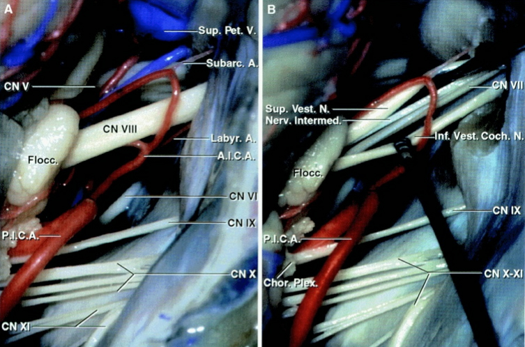 Figure 4: Exposure of the cranial nerves in the cerebellopontine angle after a right-sided retrosigmoid approach. Note the relationship of the AICA and PICA to the CN VII/VIII complex (A). The facial nerve is located anterior to the superior vestibular nerve.  The AICA or its labyrinthine branch transecting the CN VII/VIII complex are often not the main offending vessels and must be carefully handled during surgery to avoid hearing loss  (B)(Images courtesy of AL Rhoton, Jr).