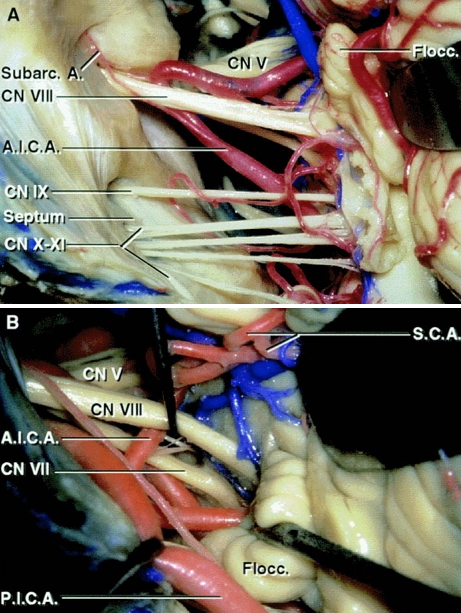Figure 5: An enlarged view of the left cerebellopontine angle and its contents when viewed from a retrosigmoid approach. Note the relationship of AICA to CN VIII (A). The subarcuate artery must be preserved during operative maneuvers. The vestibulocochlear nerve and flocculus have been elevated to expose the junction of the facial nerve at the brainstem (B).     It is important to remember that the retrosigmoid approach exposes the root exit zone of the facial nerve at the brainstem below the root entry zone of the vestibulocochlear nerve  (Images courtesy of AL Rhoton, Jr).