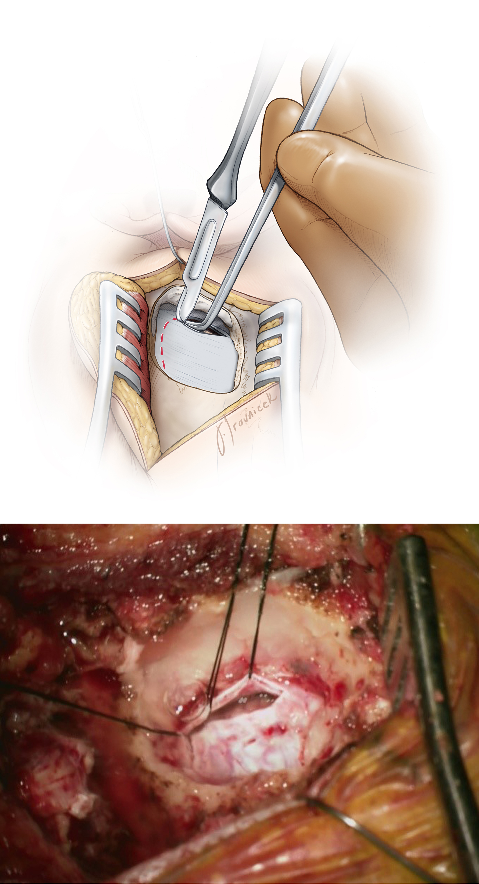 Figure 9: The method for dural opening (top image). A magnified operative photo also demonstrates the extent of craniotomy and dural opening (bottom image). There is no need to expose the transverse sinus. Unlike the linear skin incision, the curvilinear incision mobilizes the retracted myocutaneous flap inferiorly and prevents it from increasing the operator's working distance.