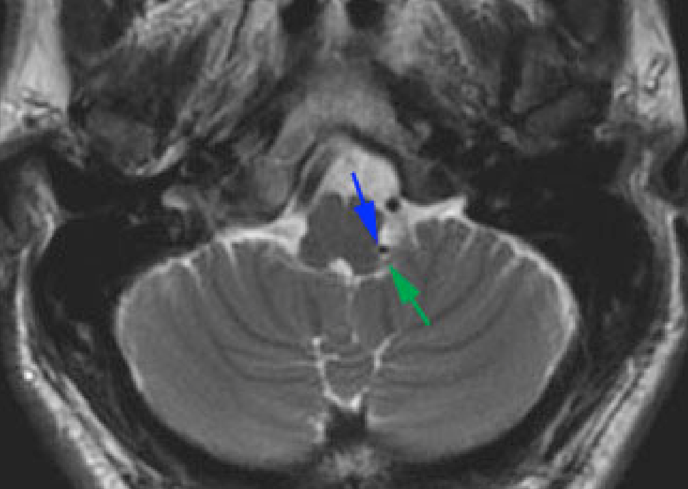 Figure 1: Axial high-resolution MRI demonstrates a vascular loop (blue arrow) at the level of lower cranial nerves near the brainstem (green arrow).