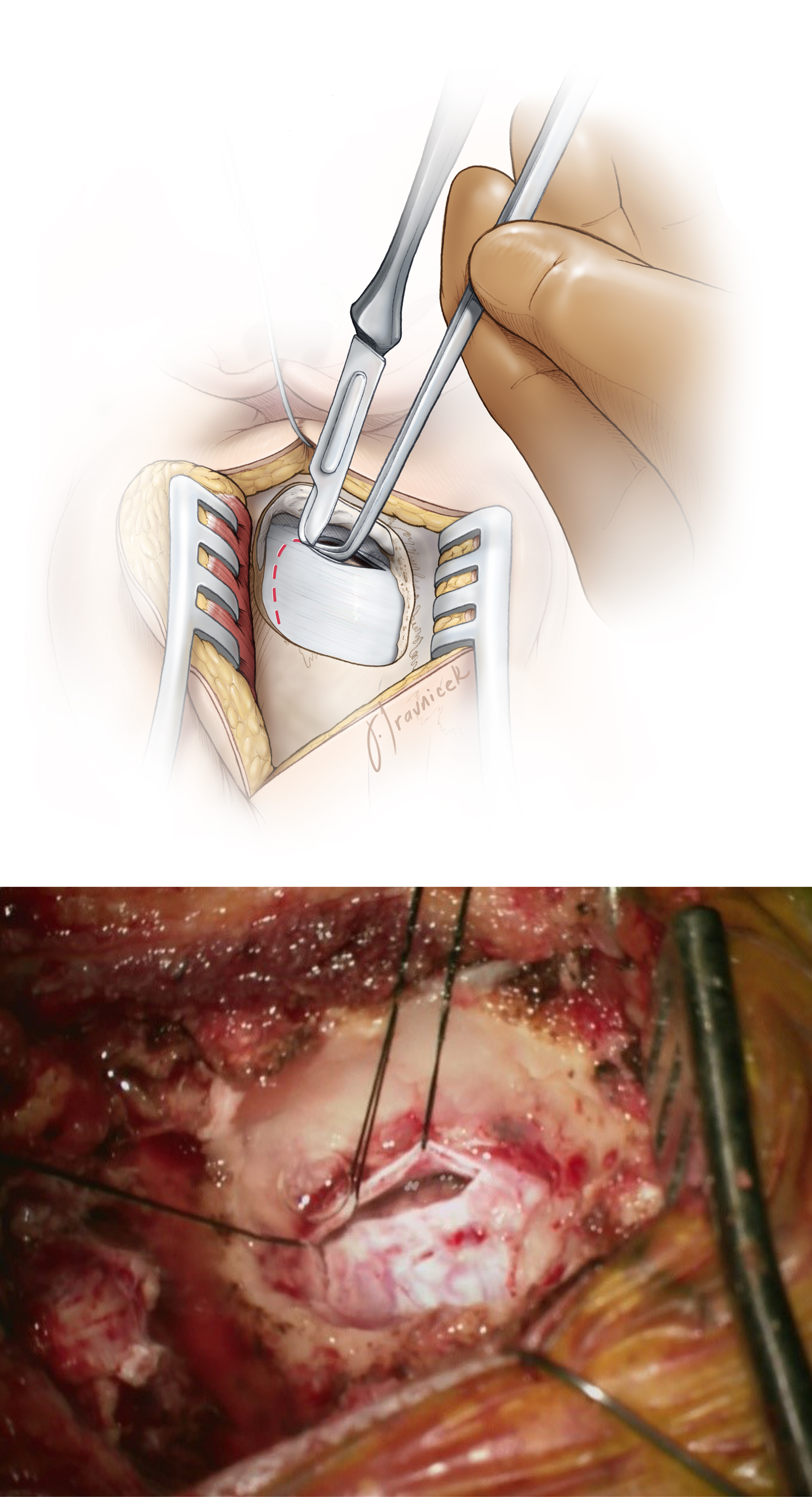 Figure 6: A technique for incising the dura (top image). A magnified operative photo demonstrates the extent of craniotomy and dural opening parallel to the sigmoid sinus and floor of posterior fossa (bottom image). There is no need to expose the transverse sinus. This mode of dural opening leaves most the dura on the cerebellum and therefore avoids desiccation and shrinkage of the dura under the operating microscope's intense light.    Unlike the linear skin incision, the curvilinear incision mobilizes the retracted myocutaneous flap inferiorly and prevents it from increasing the operator's working distance.