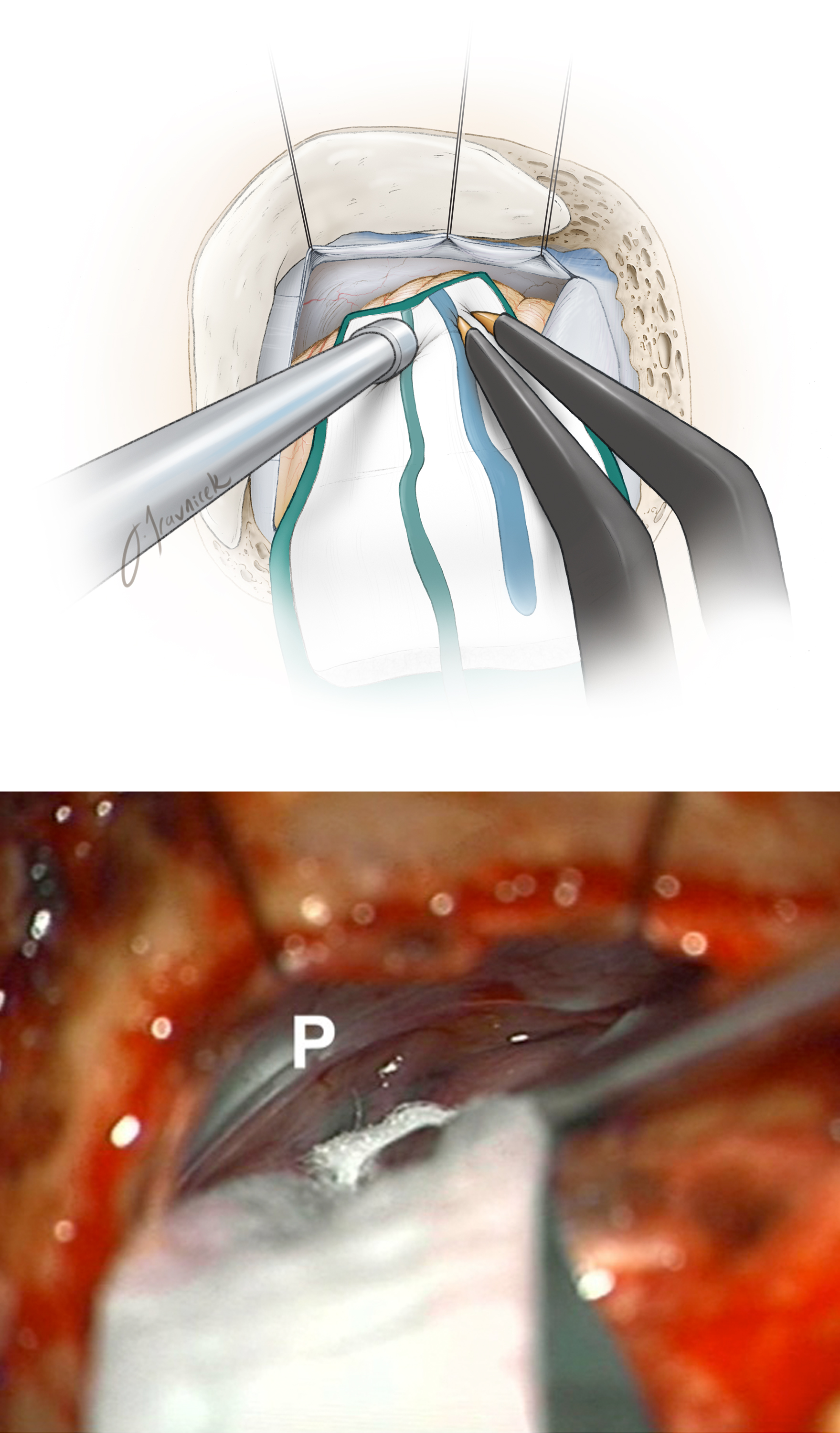 Figure 7: Supramedial cerebellar retraction: A piece of glove (cut slightly larger than the cottonoid patty) acts as a rubber dam. It protects the cerebellar hemisphere against the rough surface of the cottonoid as the rubber dam slides over the cerebellum while dissection is continued to expose the cerebellopontine angle (top image). I identify the junction of the petrous bone and the floor of posterior fossa (P, bottom intraoperative image) and advance the cottonoid over the rubber dam near the turn of the petrous bone toward the lower cranial nerves.