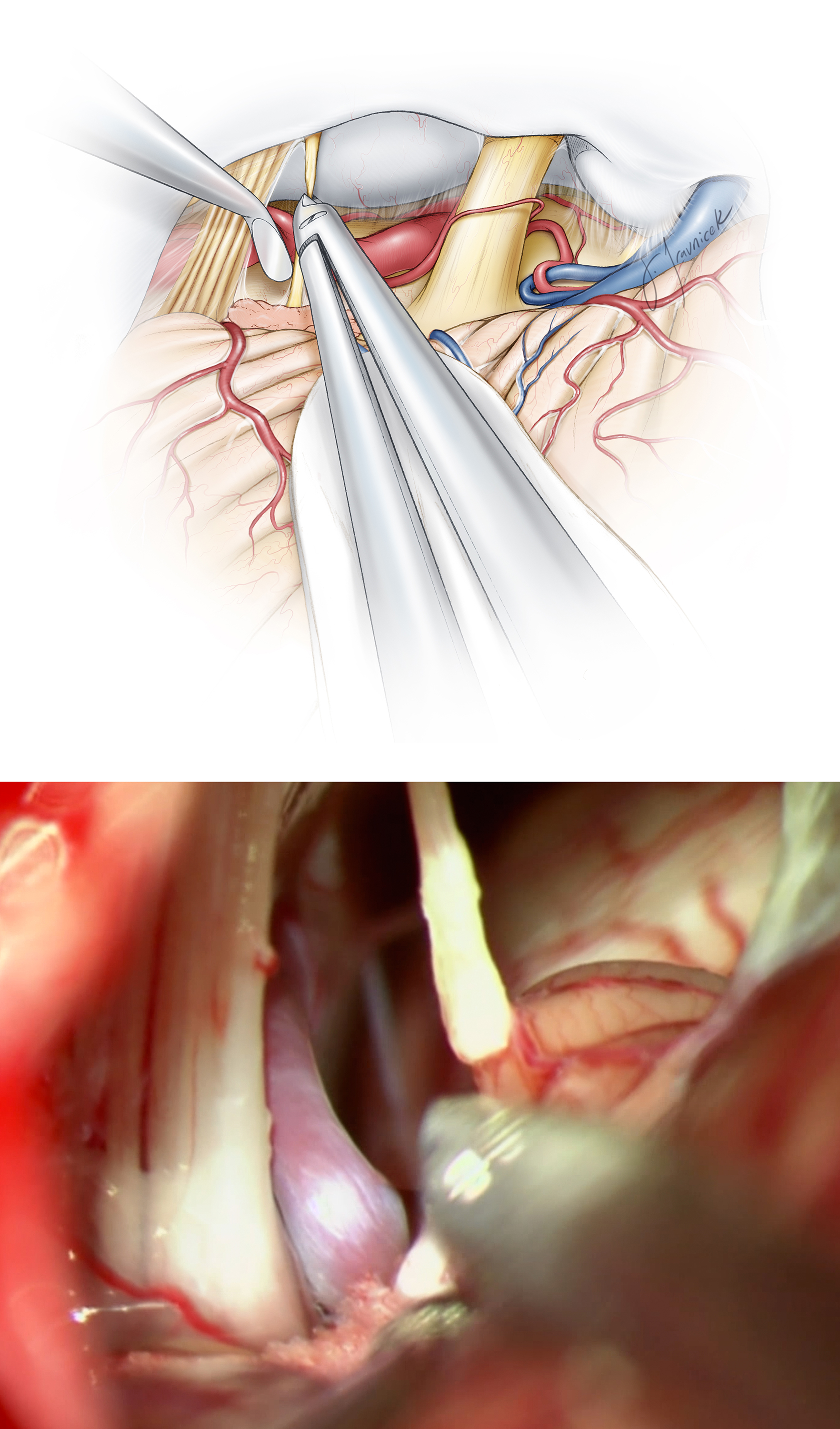 Figure 11: Once CN's VII through X can be adequately visualized, I sharply divide CN IX close to the brainstem after its coagulation. Before dividing the nerve, I give proper warning to the anesthesiologist since dramatic hypotension or tachycardia is possible, especially among older patients. In my experience, the morbidity risk of severing CN IX is minimal, and this maneuver provides valuable and much needed space to adequately decompress CN X.