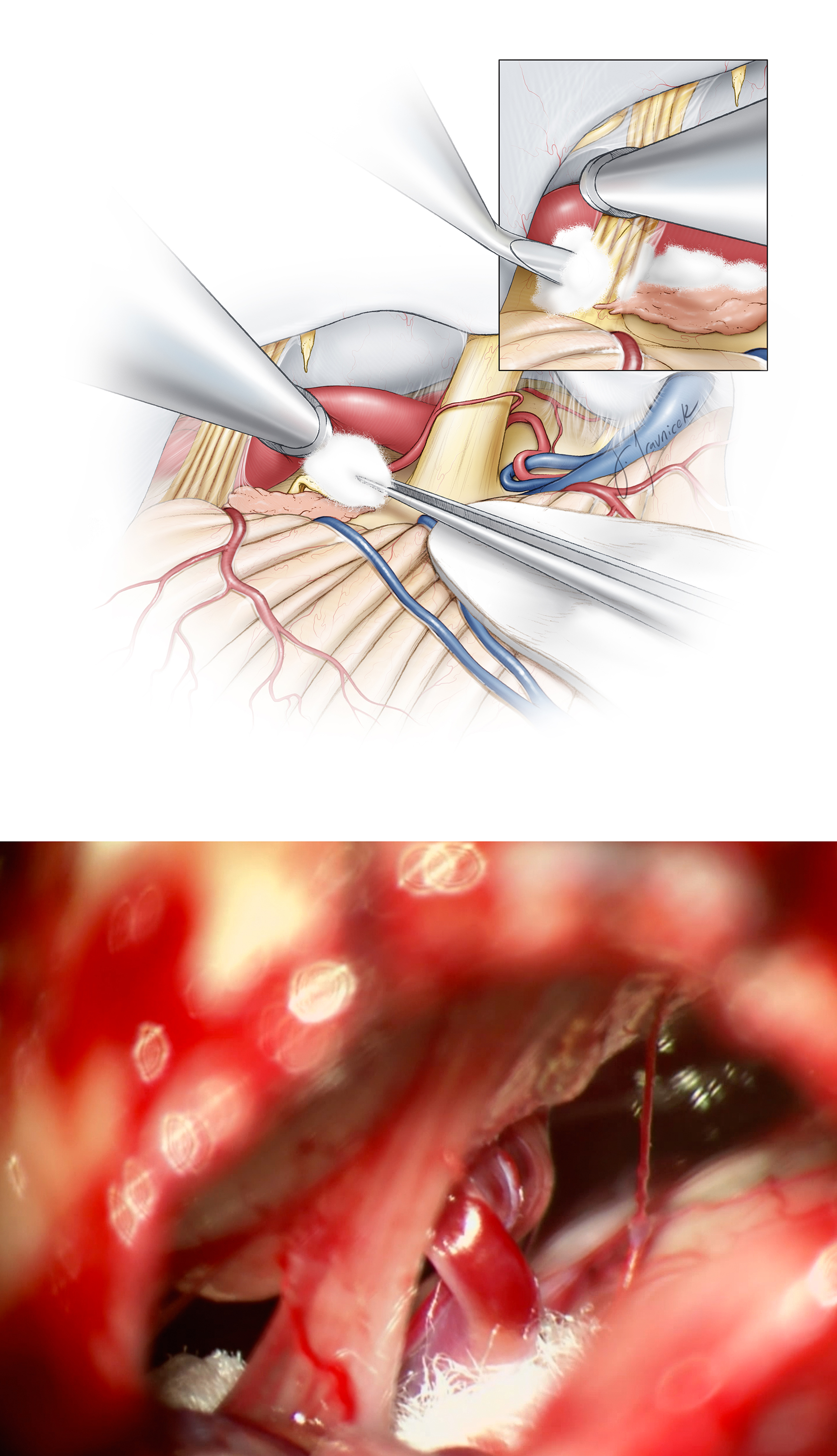 Figure 13: To thoroughly relieve the neurovascular conflict, I implant multiple pieces of shredded Teflon while working above and below CN X. Teflon is also placed between the brainstem and the offending loop at the level of CN X (top image-inset). Sequential introduction of these pieces of Teflon helps with mobilization of the vessel and prevents its return to its original position (bottom image). An excessive amount of Teflon should be avoided as it can cause an inflammatory reaction and chemical meningitis.