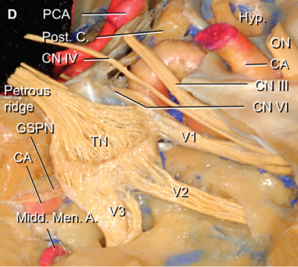 Figure 3: The dissection of the Meckel's cave and cavernous sinus on the right side after removing the periosteal layer of the dura mater. Placement of the needle or cannula on the medial section of the foramen allows the balloon, electrode, or glycerol solution to make the most contact with the trigeminal roots and enter the trigeminal cistern. Images reproduced with permission from Peris-Celda M, Graziano F, Russo V, Mericle RA, Ulm AJ. Foramen ovale puncture, lesioning accuracy, and avoiding complications: Microsurgical anatomy study with clinical implications.  J Neurosurg  2013;119: 1176-1193.