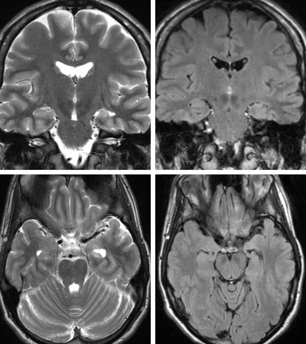 Figure 1: Left medial temporal lobe sclerosis is demonstrated. Note the left hippocampal atrophy and subtle hyperintensity on T2 and FLAIR sequences.