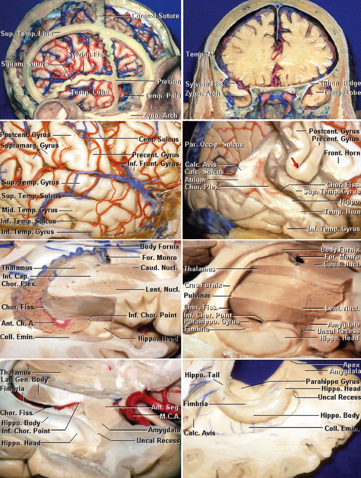 Figure 2: The superficial anatomy of the temporal lobe is shown (upper rows of images). The inferior choroidal point is defined as the entry point of the anterior choroidal artery into the temporal horn approximated by the anterior edge of the choroid plexus. A line connecting the inferior choroidal point to the middle cerebral artery bifurcation approximates the border between the amygdala and striatum (lower photos)(images courtesy of AL Rhoton, Jr). The proximity of the amygdala to the striatum is evident.